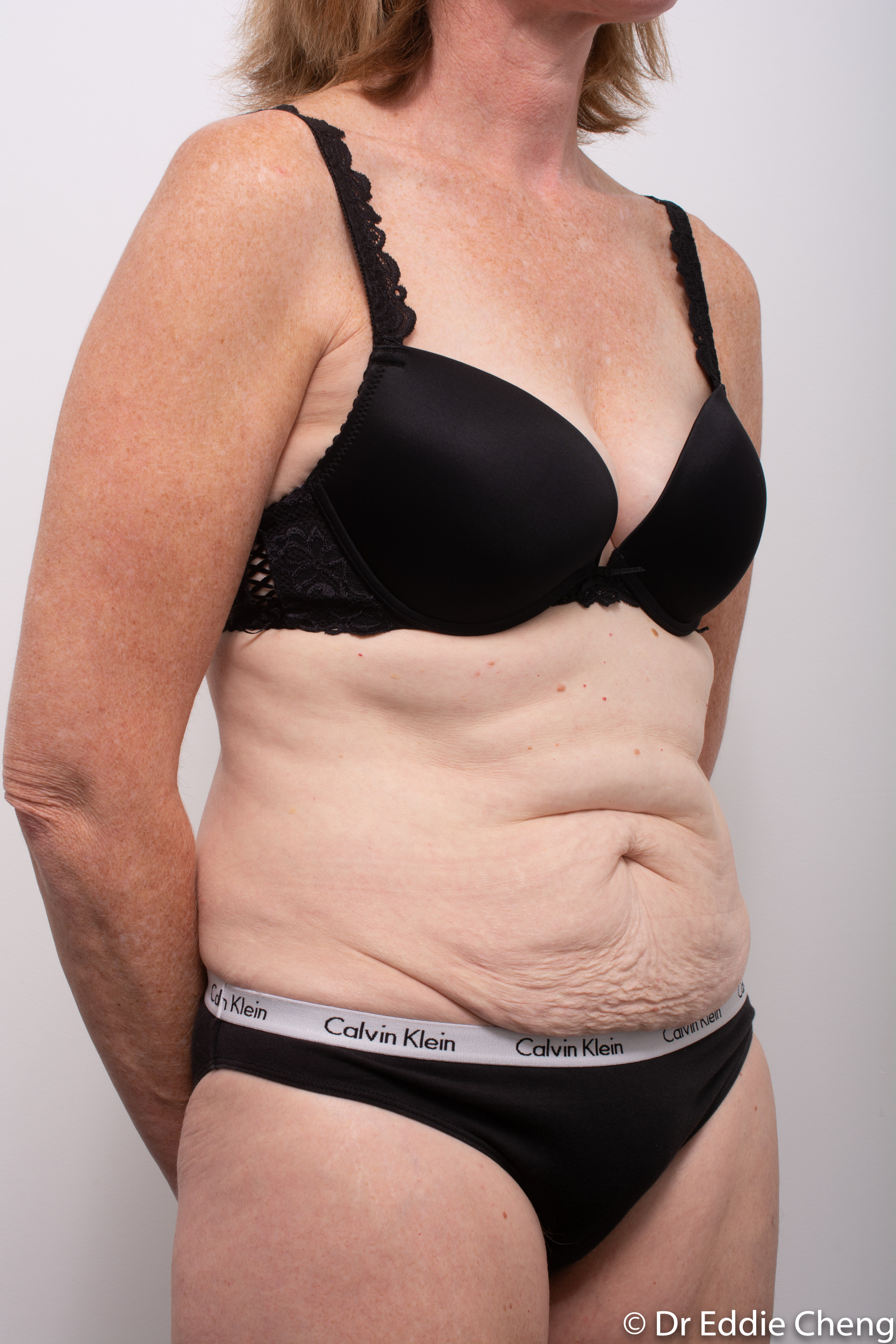 before and after abdominoplasty dr eddie cheng brisbane-2