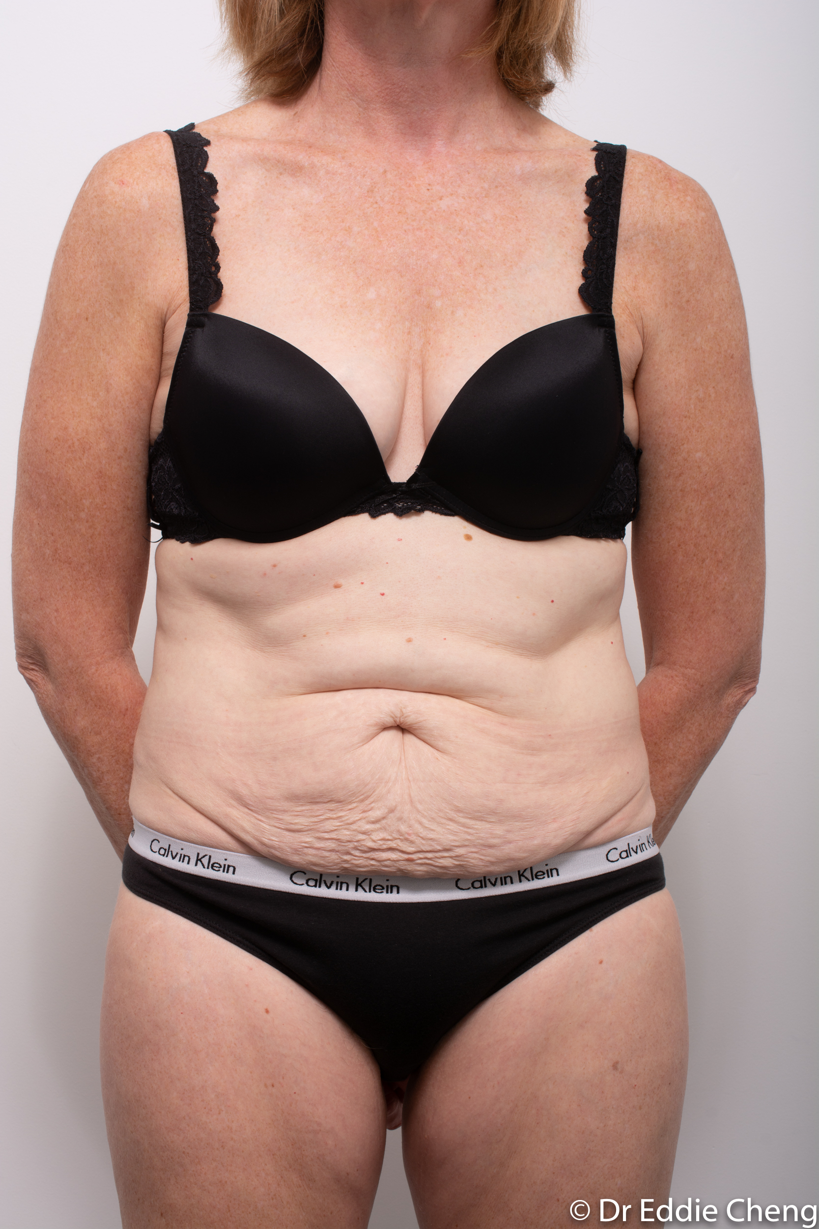 before and after abdominoplasty dr eddie cheng brisbane-3