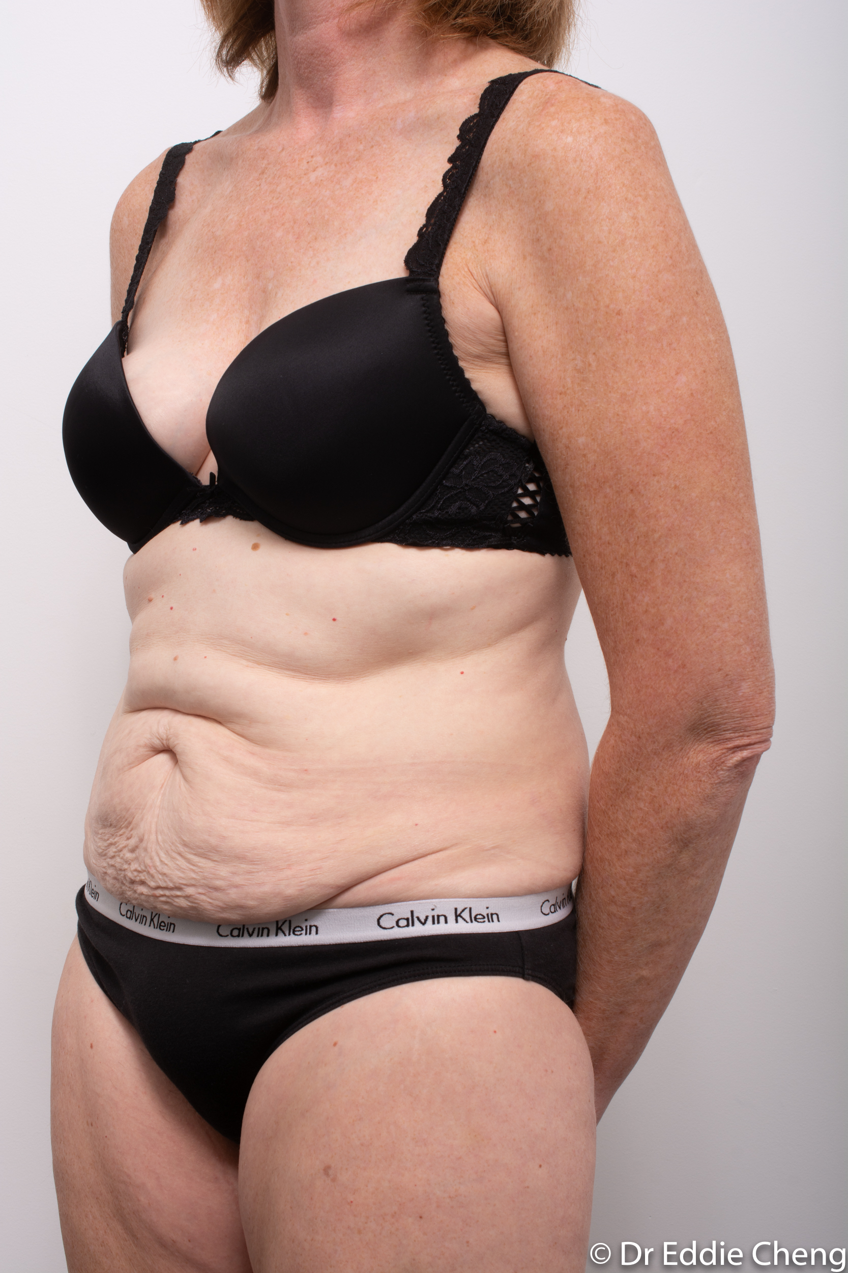 before and after abdominoplasty dr eddie cheng brisbane-4