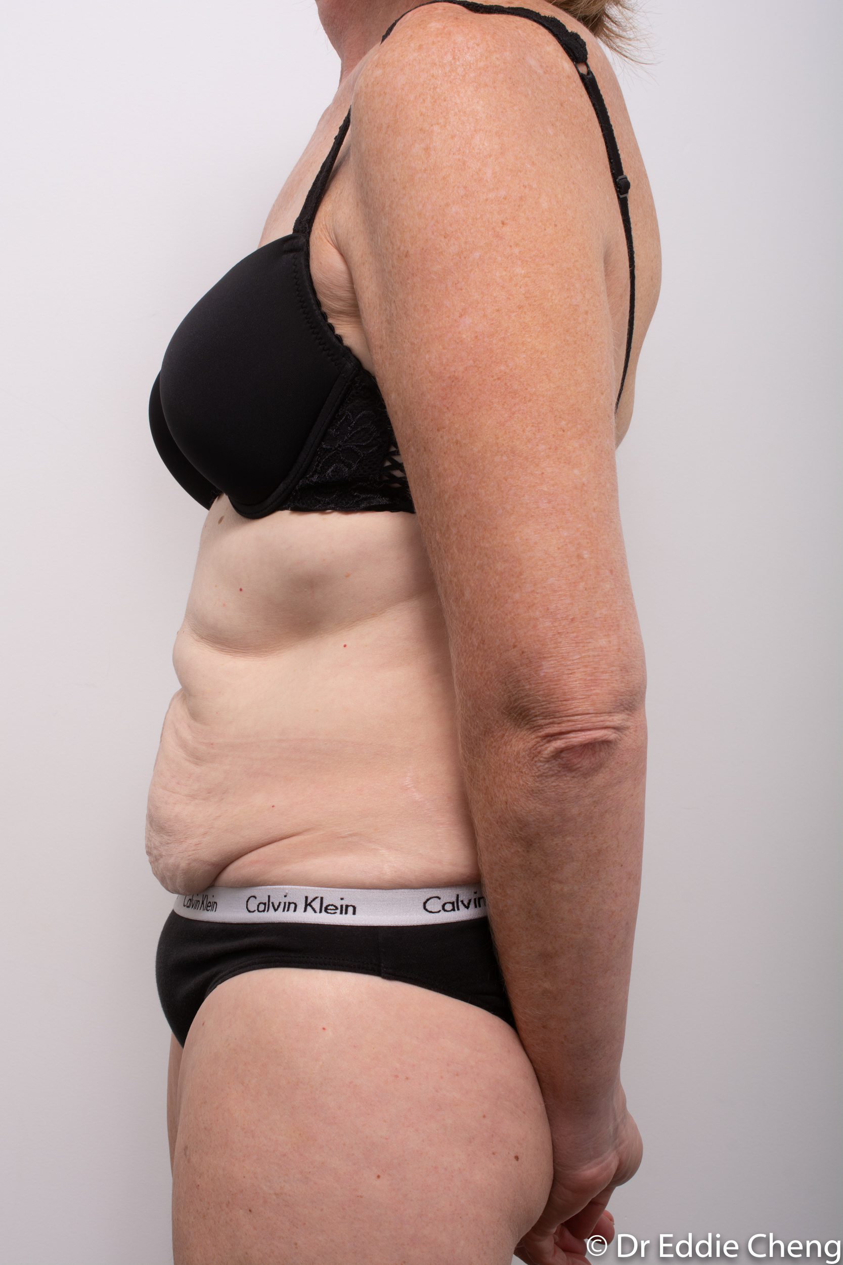 before and after abdominoplasty dr eddie cheng brisbane-5