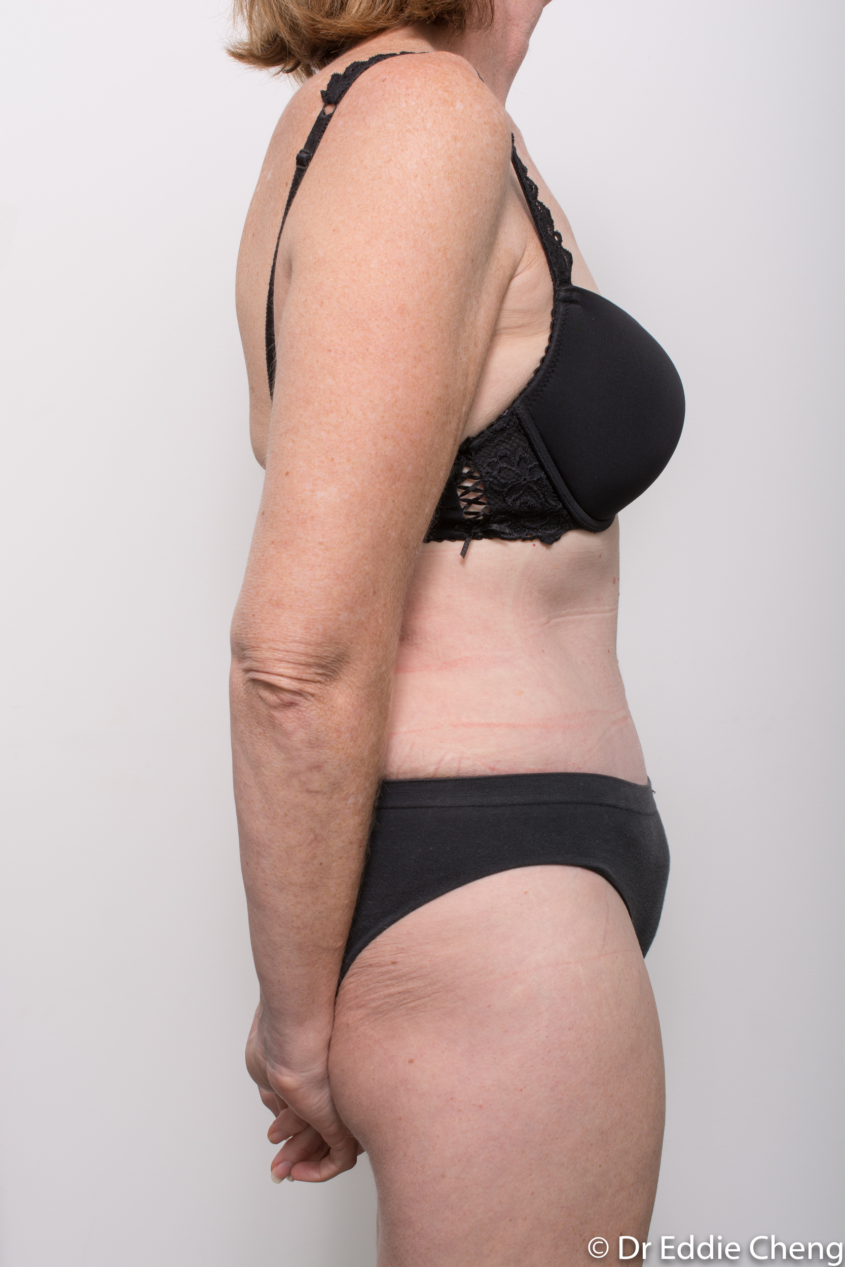 before and after abdominoplasty dr eddie cheng brisbane-6
