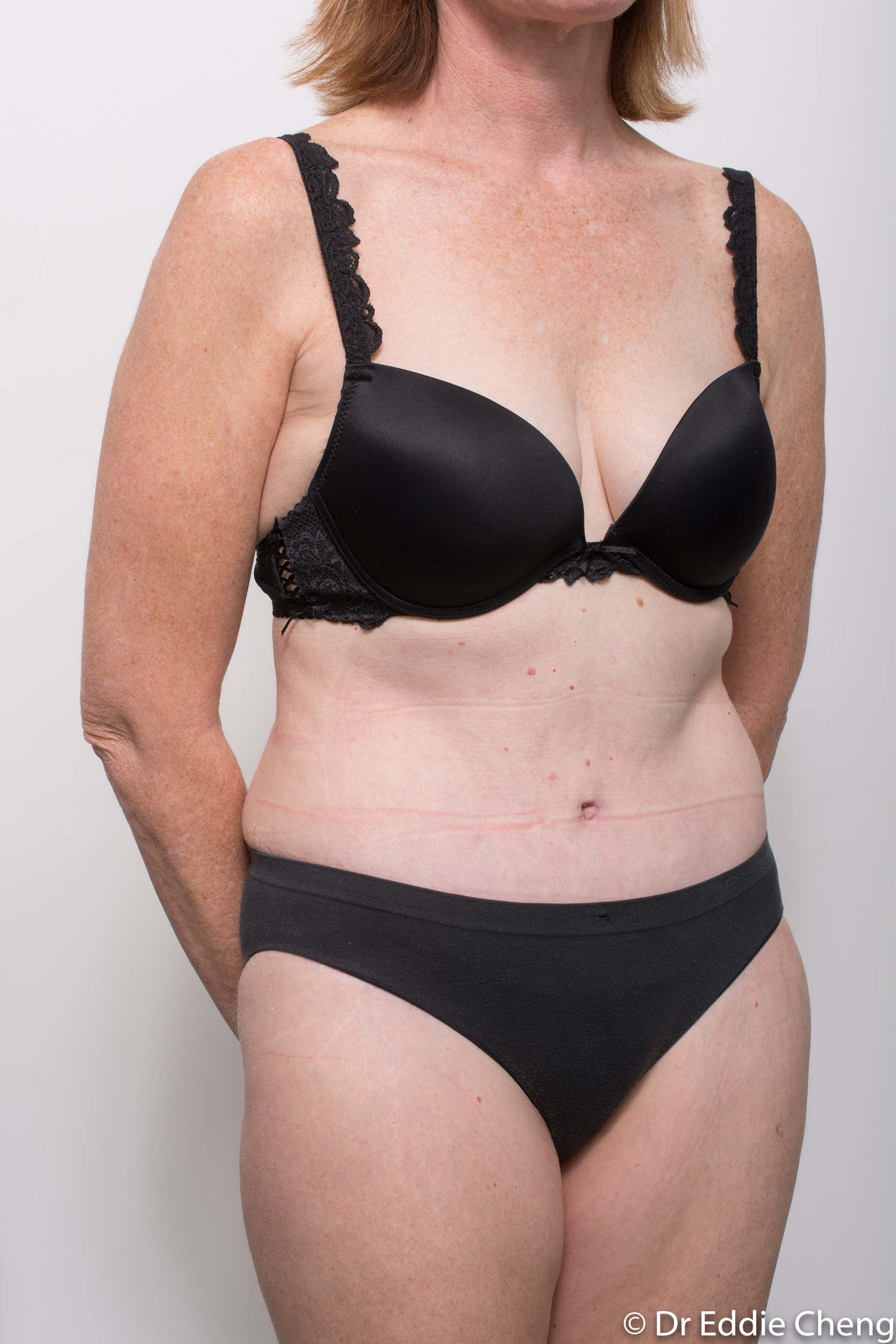 before and after abdominoplasty dr eddie cheng brisbane-7