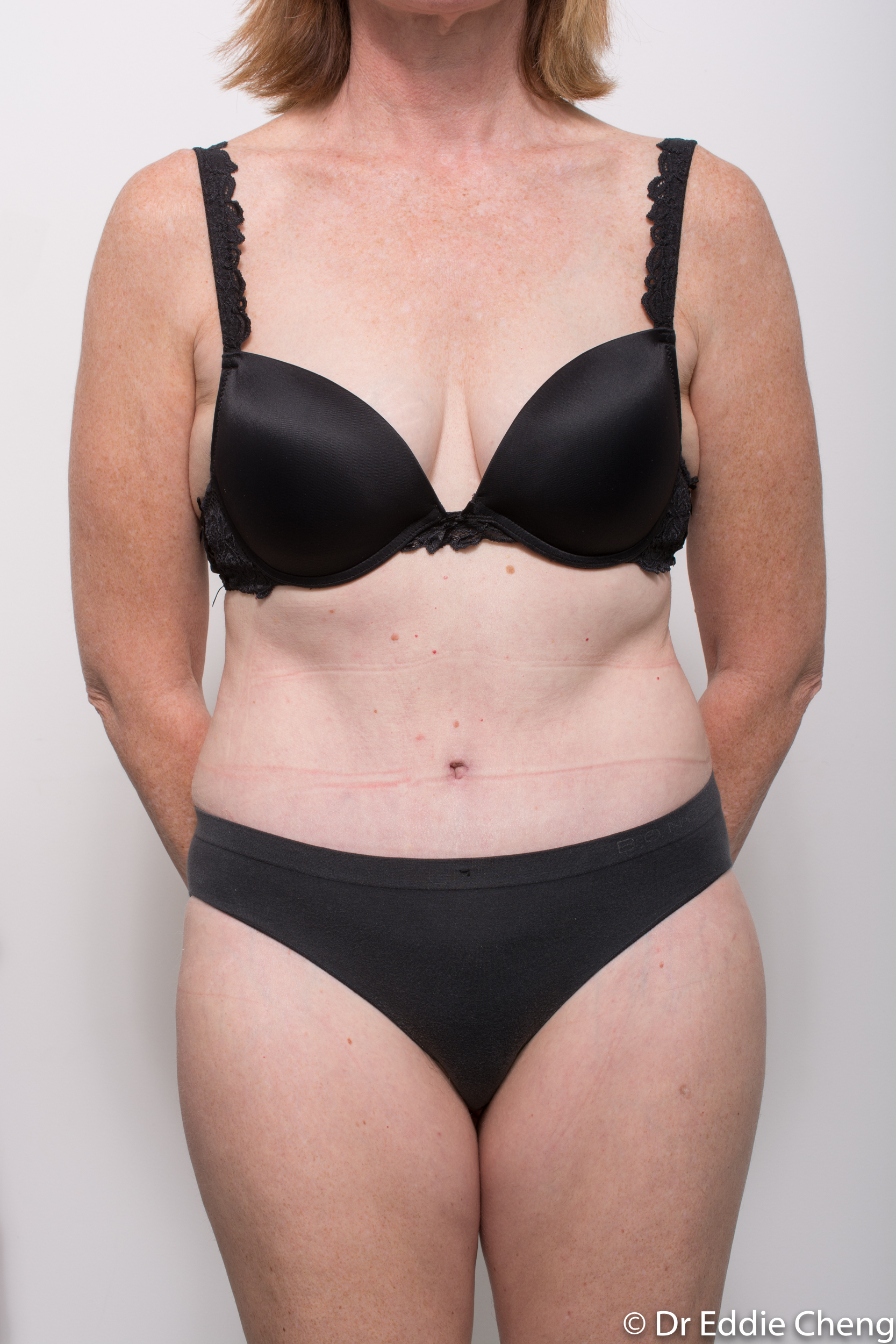 before and after abdominoplasty dr eddie cheng brisbane-8