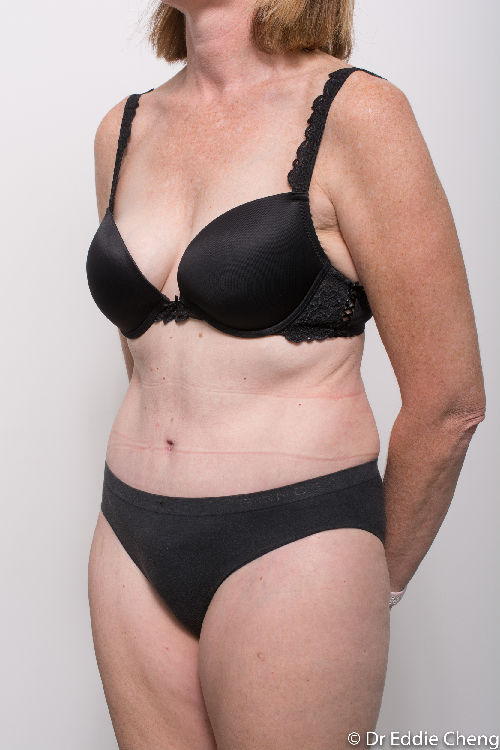 before and after abdominoplasty dr eddie cheng brisbane-9