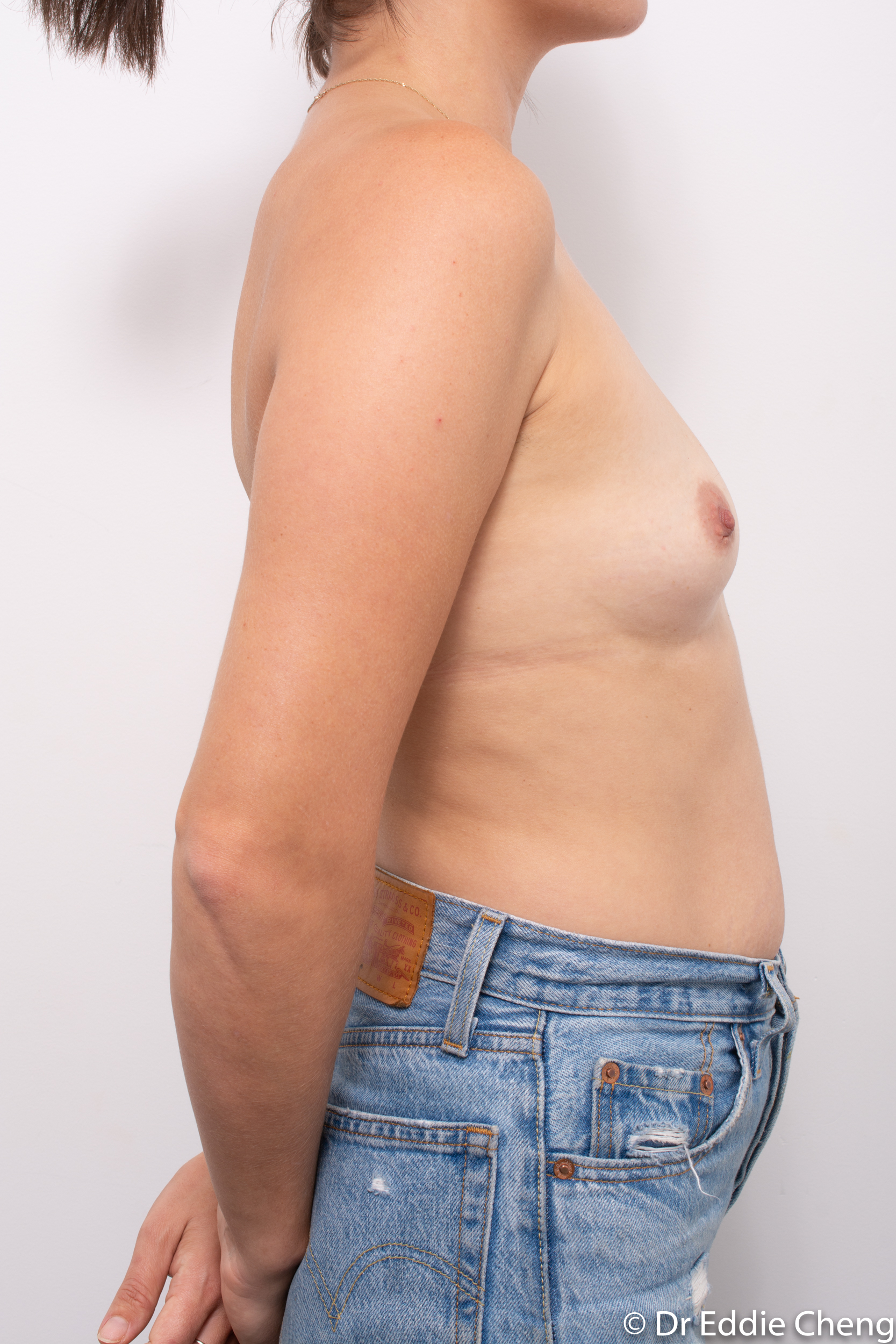 before and after breast augmentation dr eddie cheng brisbane-1