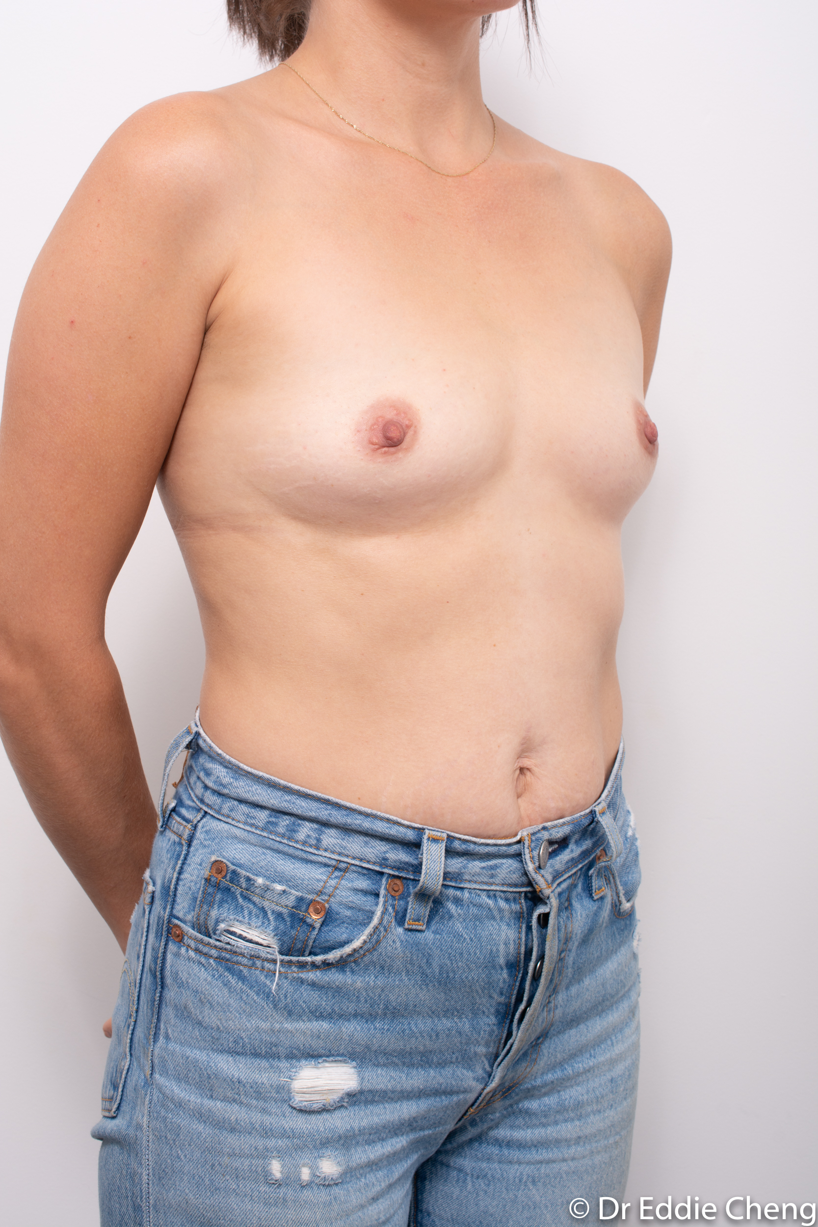 before and after breast augmentation dr eddie cheng brisbane-2