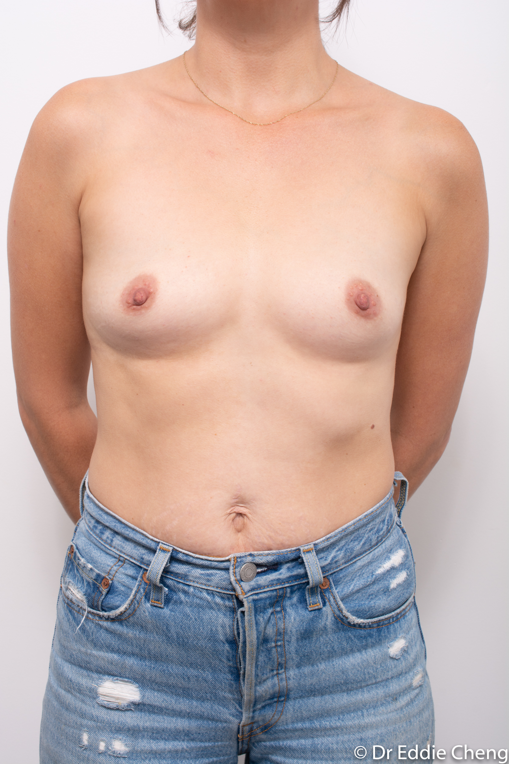 before and after breast augmentation dr eddie cheng brisbane-3