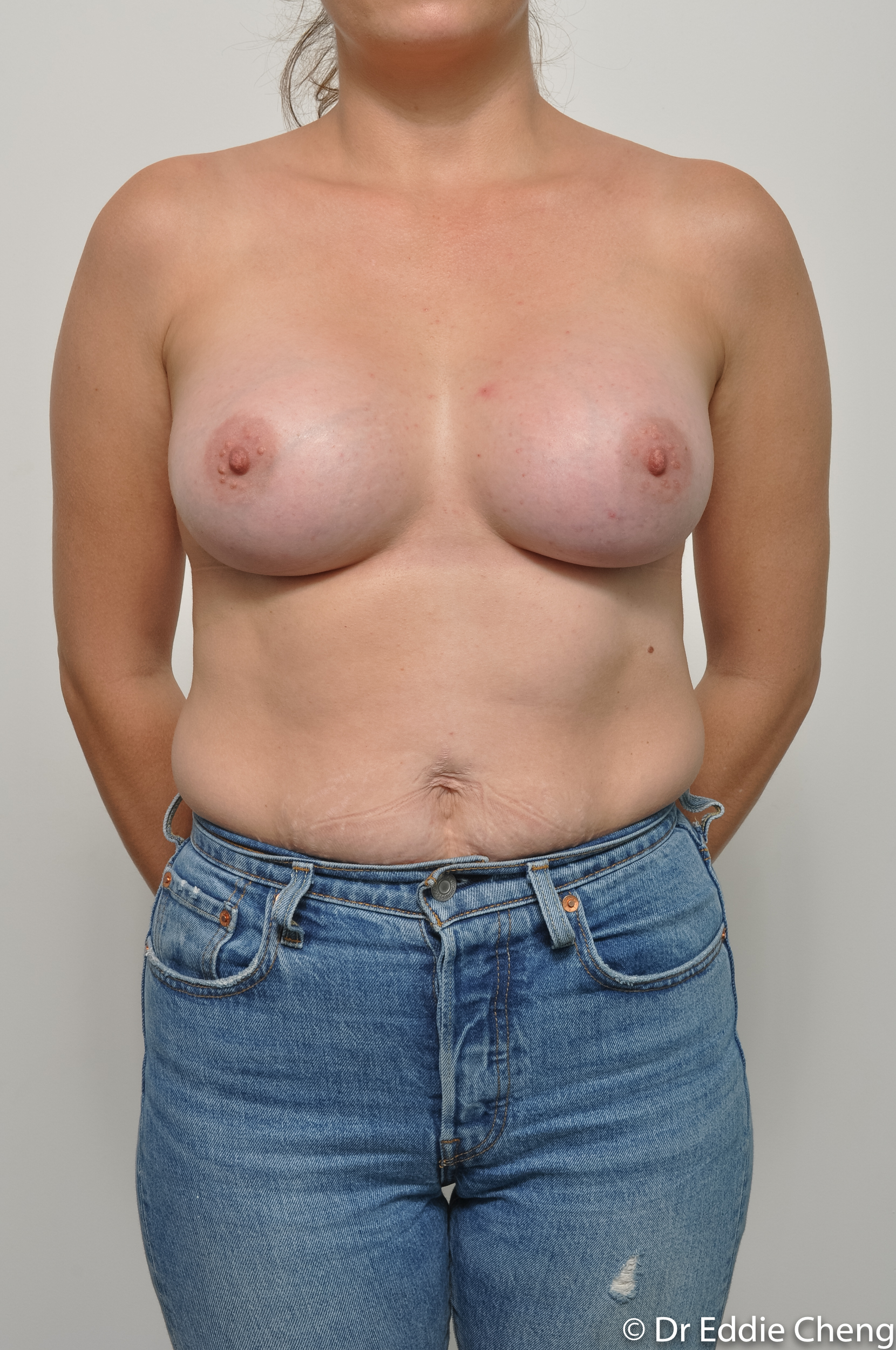 before and after breast augmentation dr eddie cheng brisbane-5