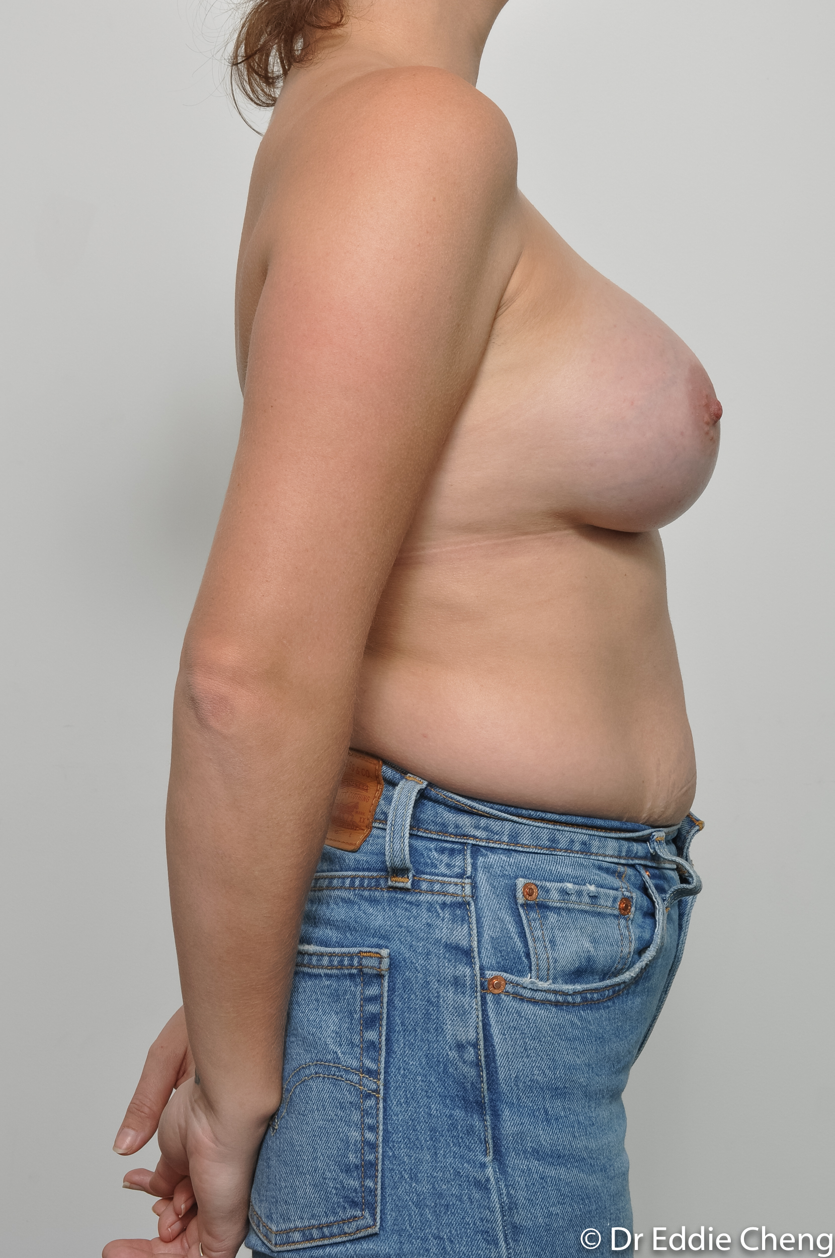 before and after breast augmentation dr eddie cheng brisbane-8