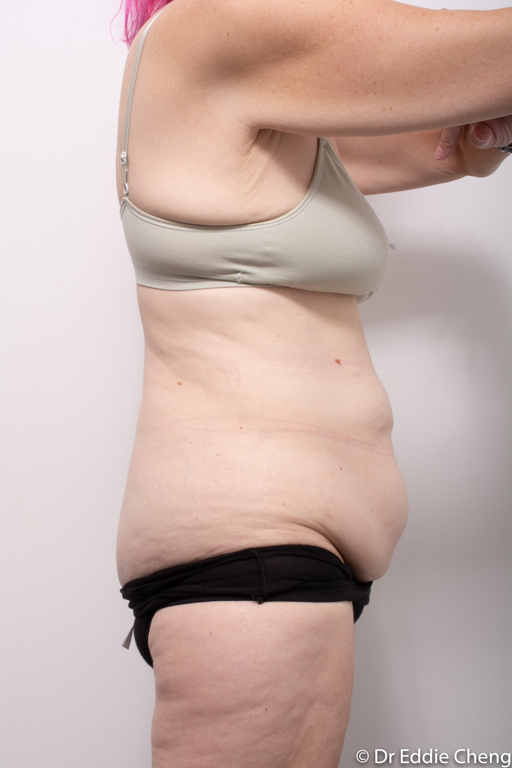 body lift brisbane dr eddie cheng weightloss pre and post op -1