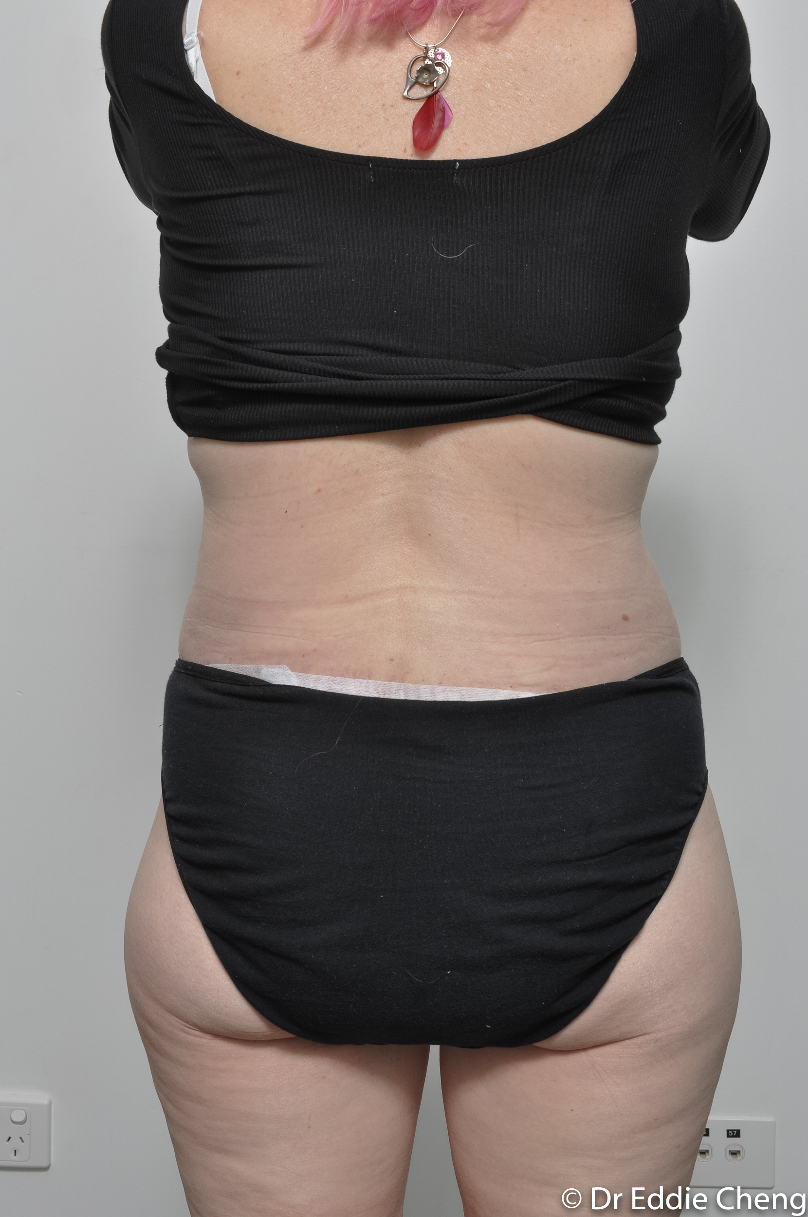 body lift brisbane dr eddie cheng weightloss pre and post op -10