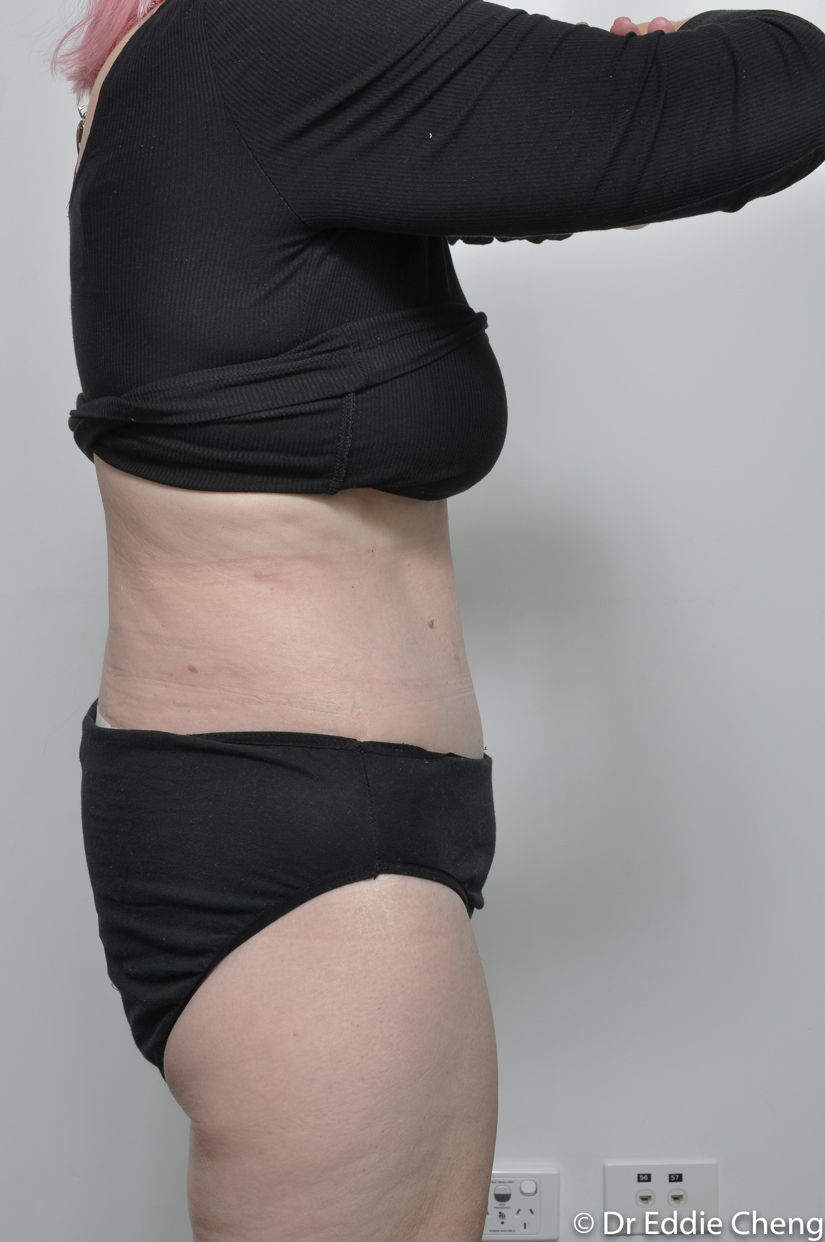 body lift brisbane dr eddie cheng weightloss pre and post op -11
