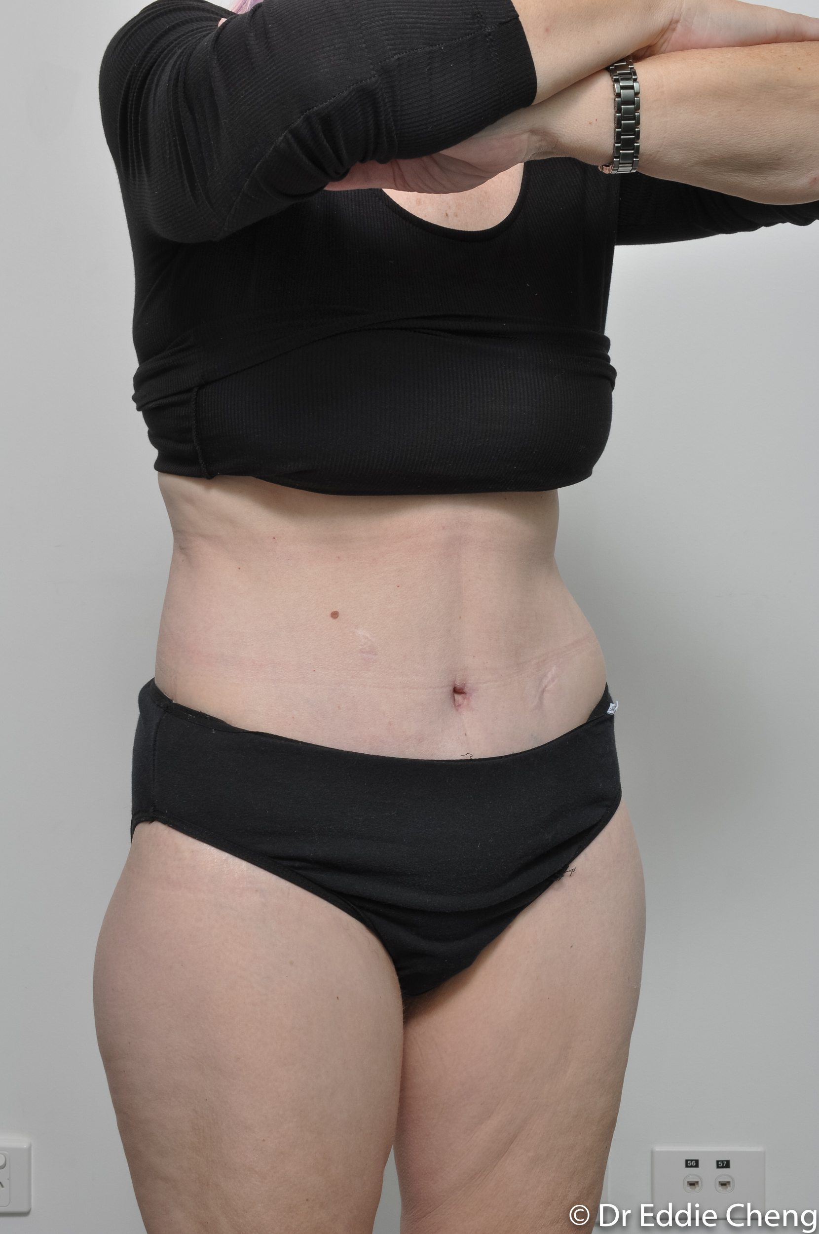 body lift brisbane dr eddie cheng weightloss pre and post op -12