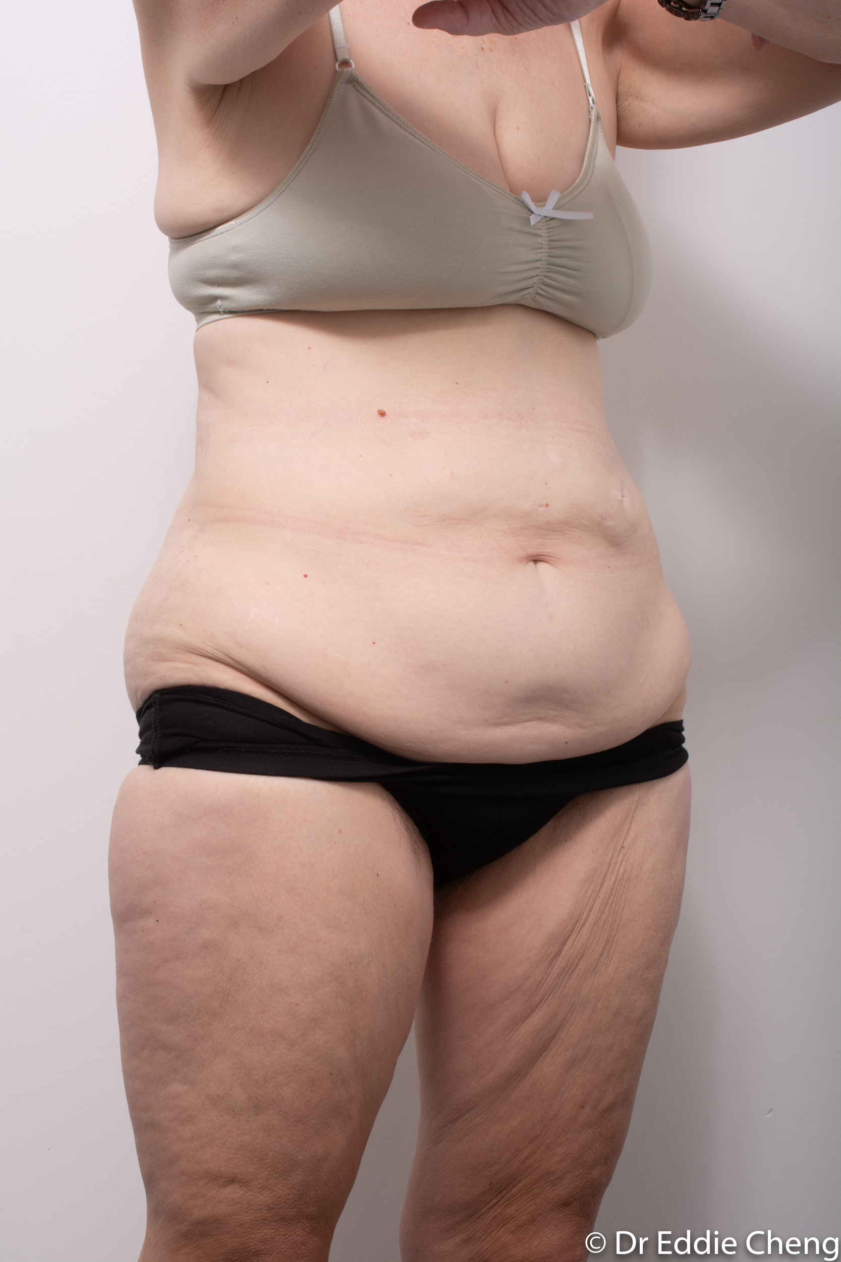 body lift brisbane dr eddie cheng weightloss pre and post op -2