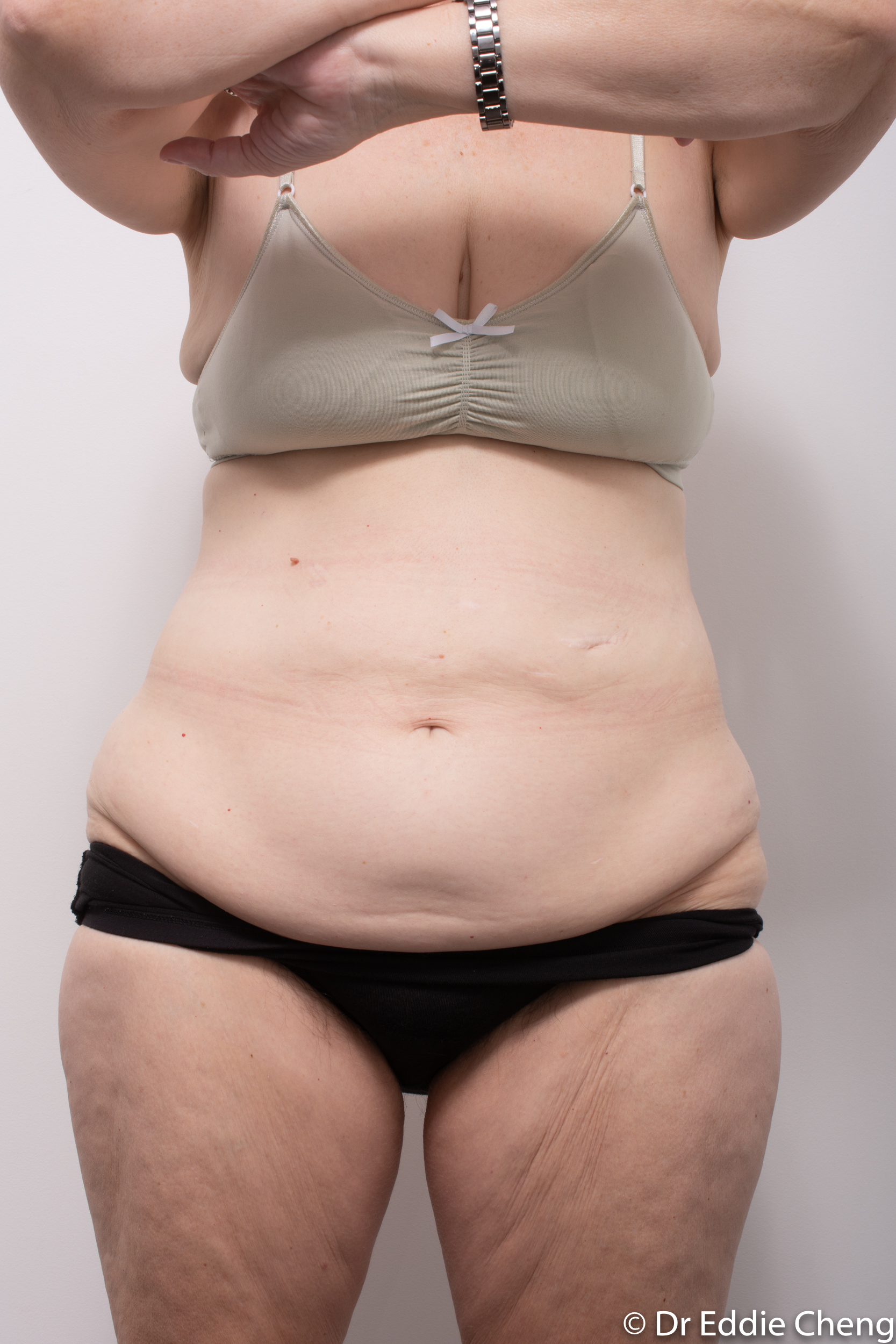 body lift brisbane dr eddie cheng weightloss pre and post op -3