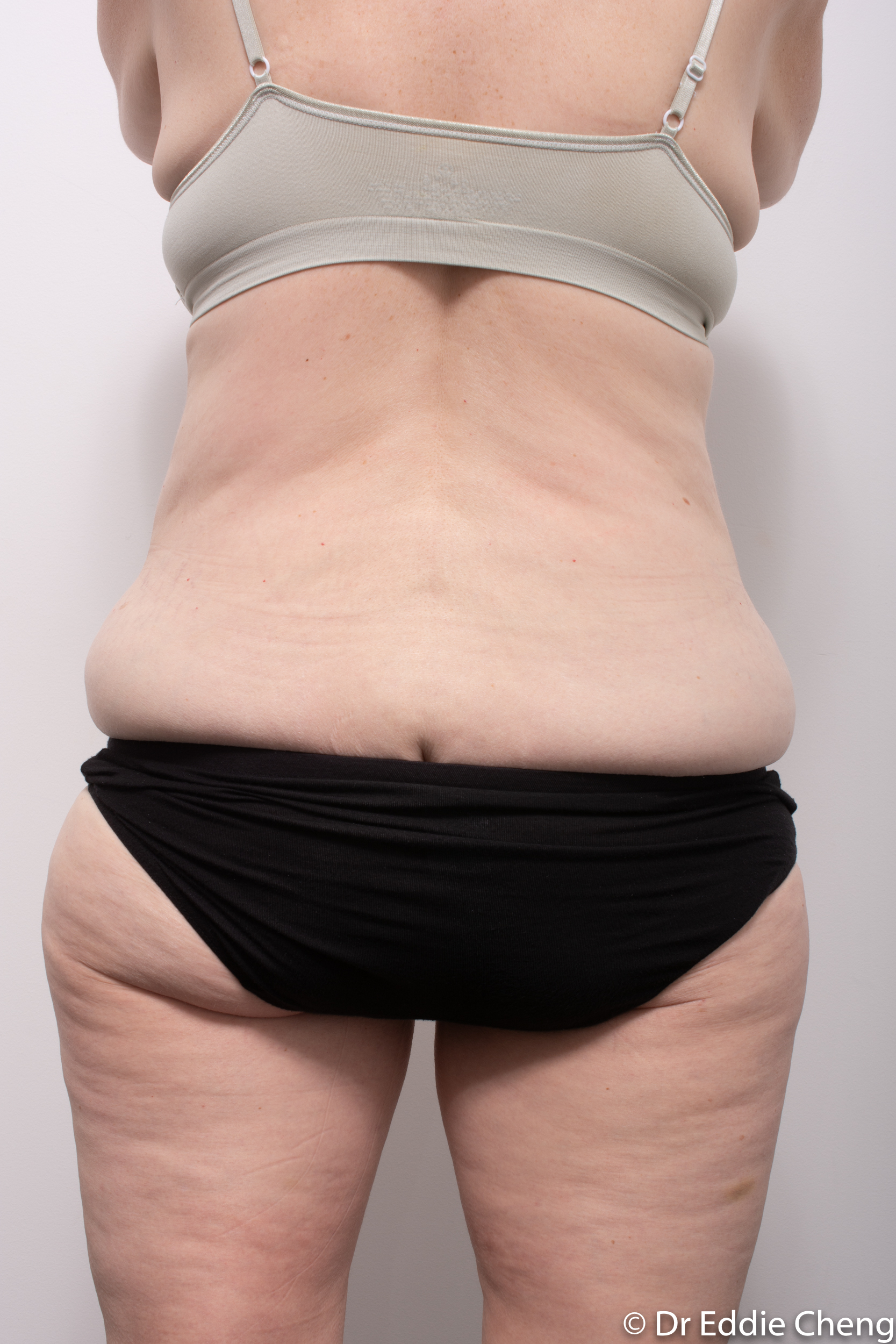 body lift brisbane dr eddie cheng weightloss pre and post op -6