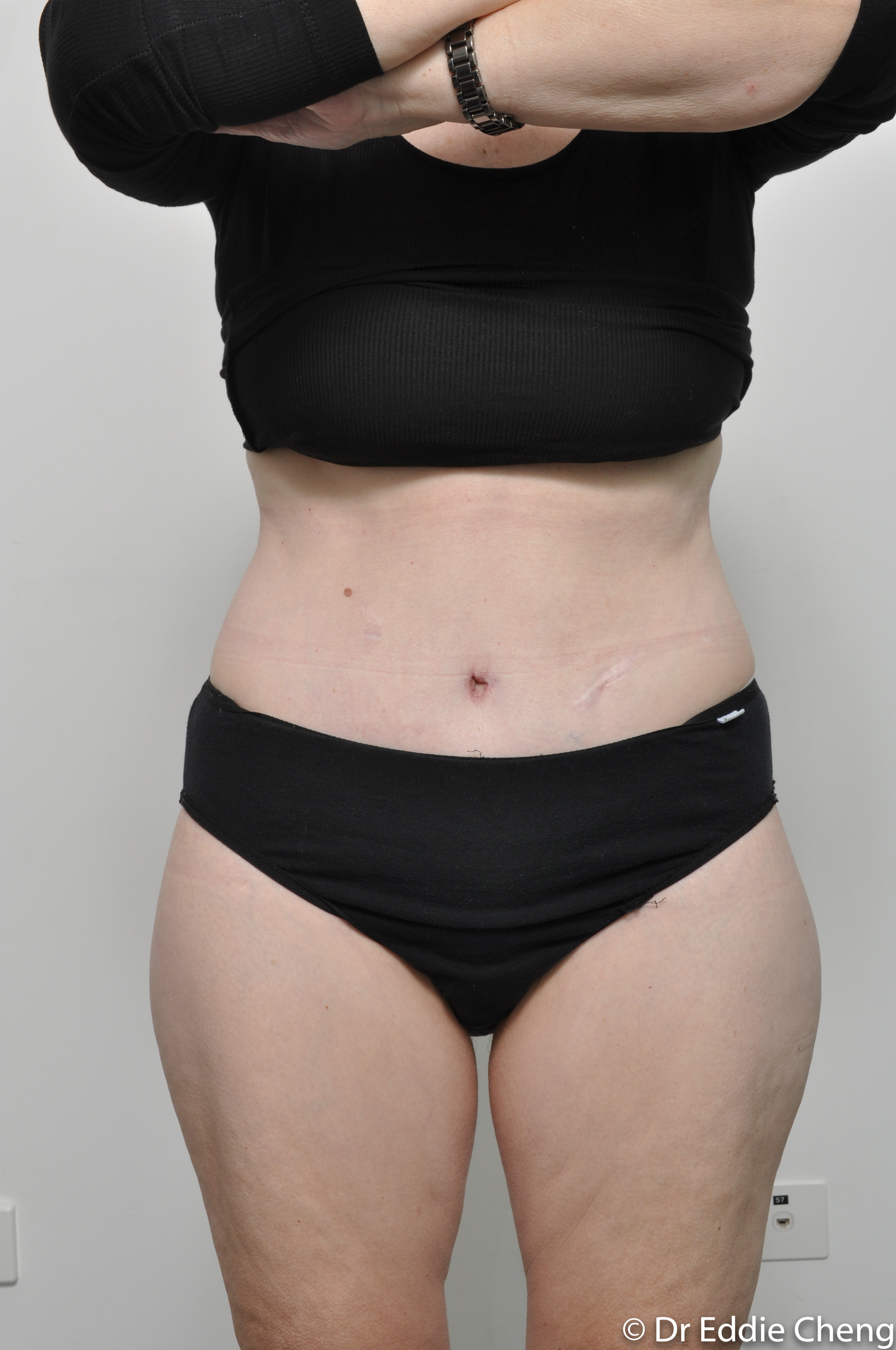 body lift brisbane dr eddie cheng weightloss pre and post op -7
