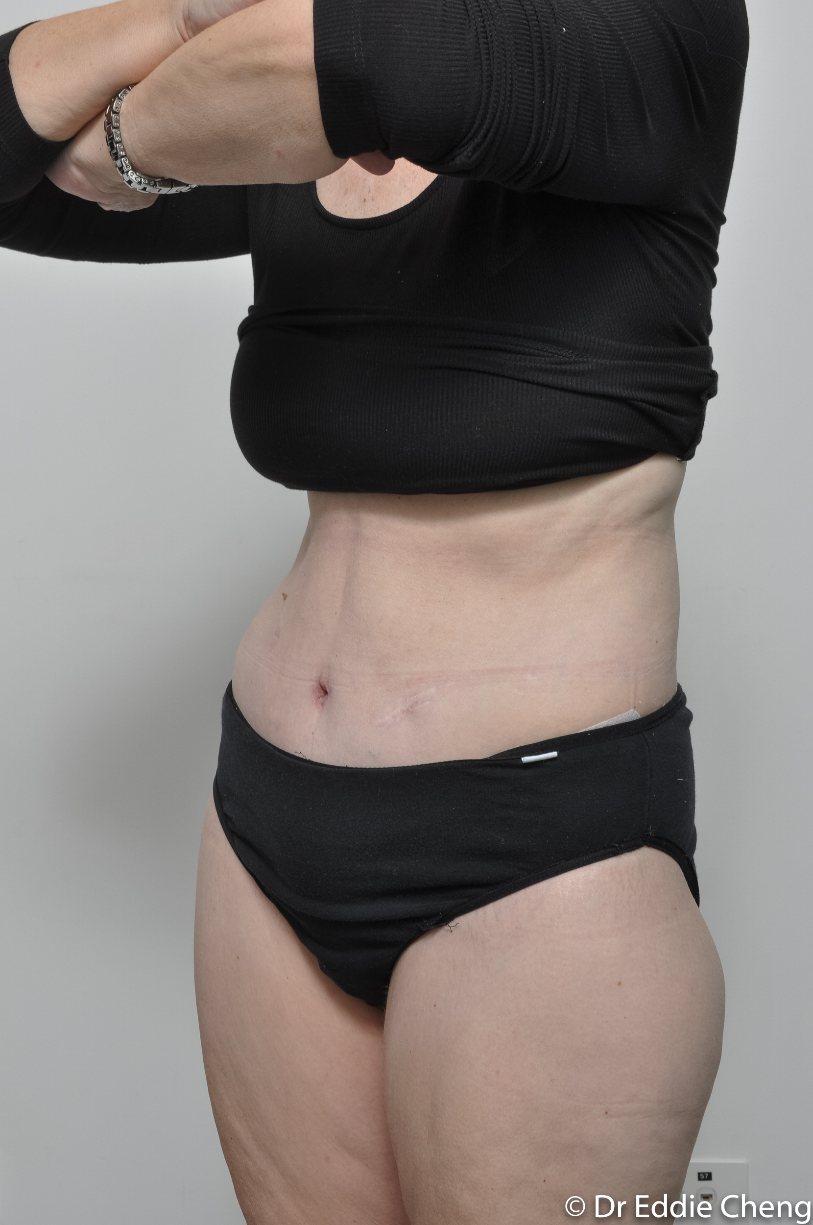 body lift brisbane dr eddie cheng weightloss pre and post op -8