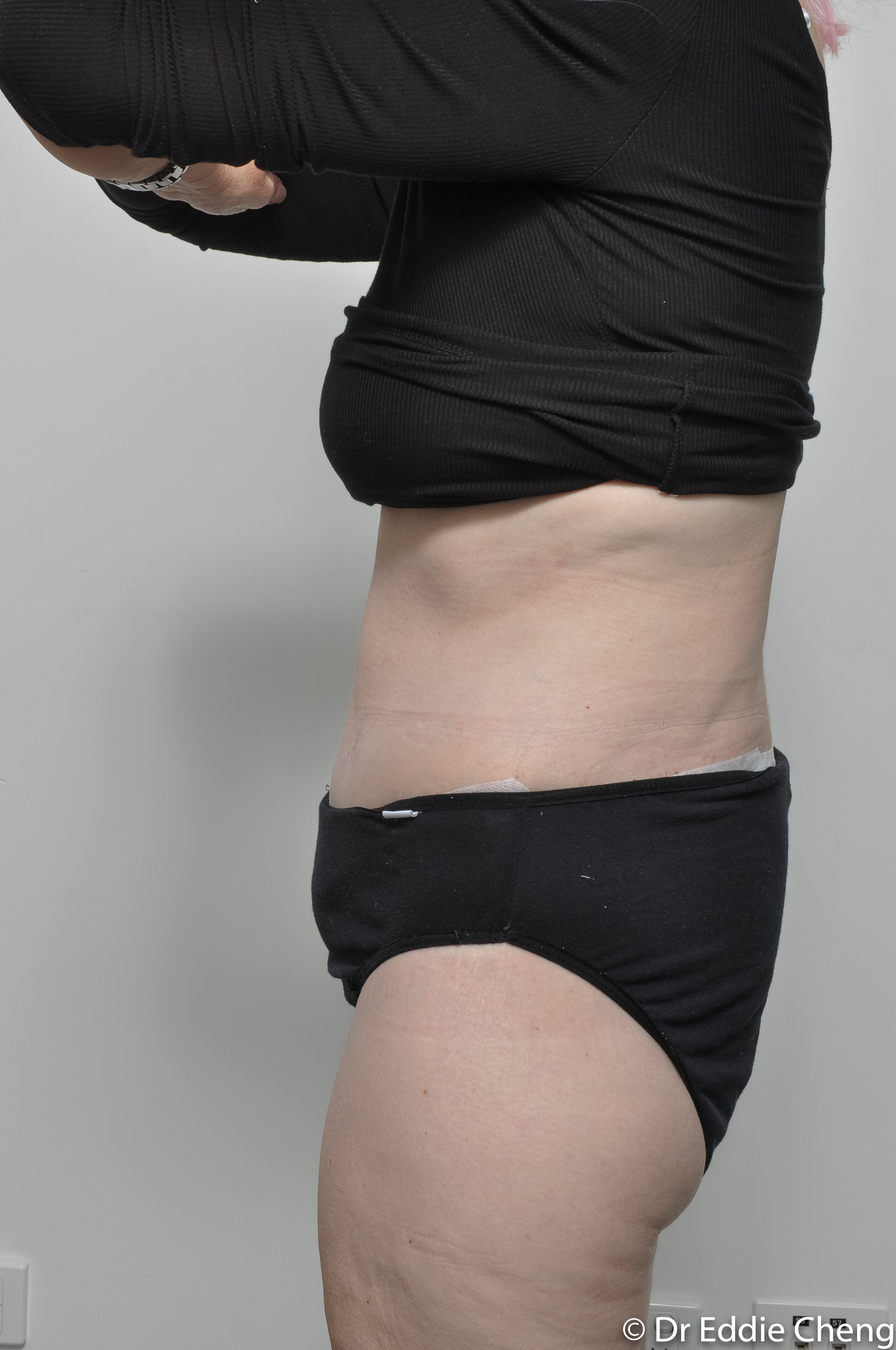 body lift brisbane dr eddie cheng weightloss pre and post op -9