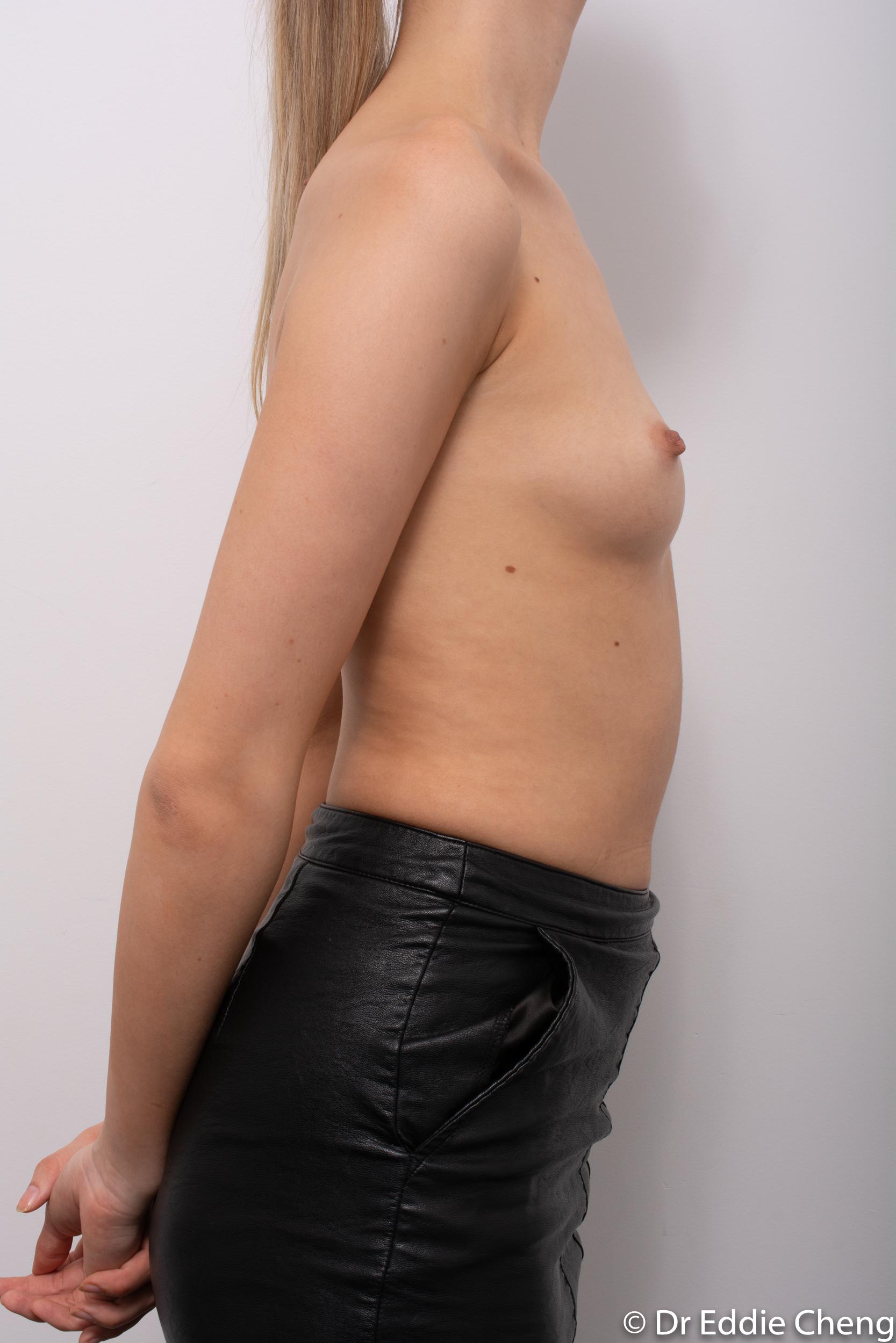 breast augmentation dr eddie cheng brisbane-1