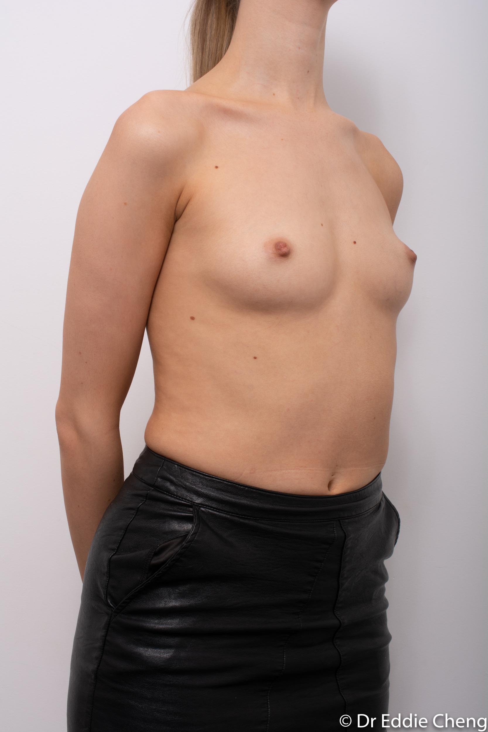 breast augmentation dr eddie cheng brisbane-2