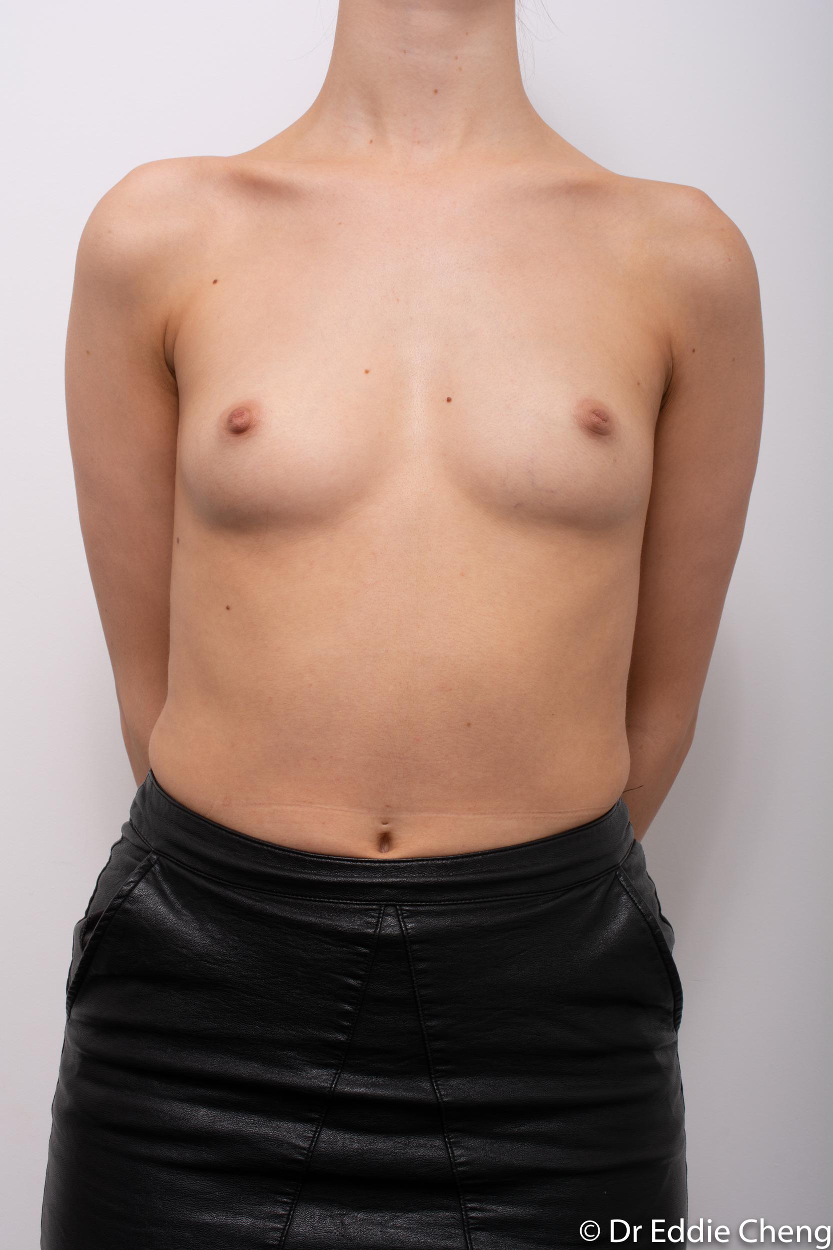breast augmentation dr eddie cheng brisbane-3