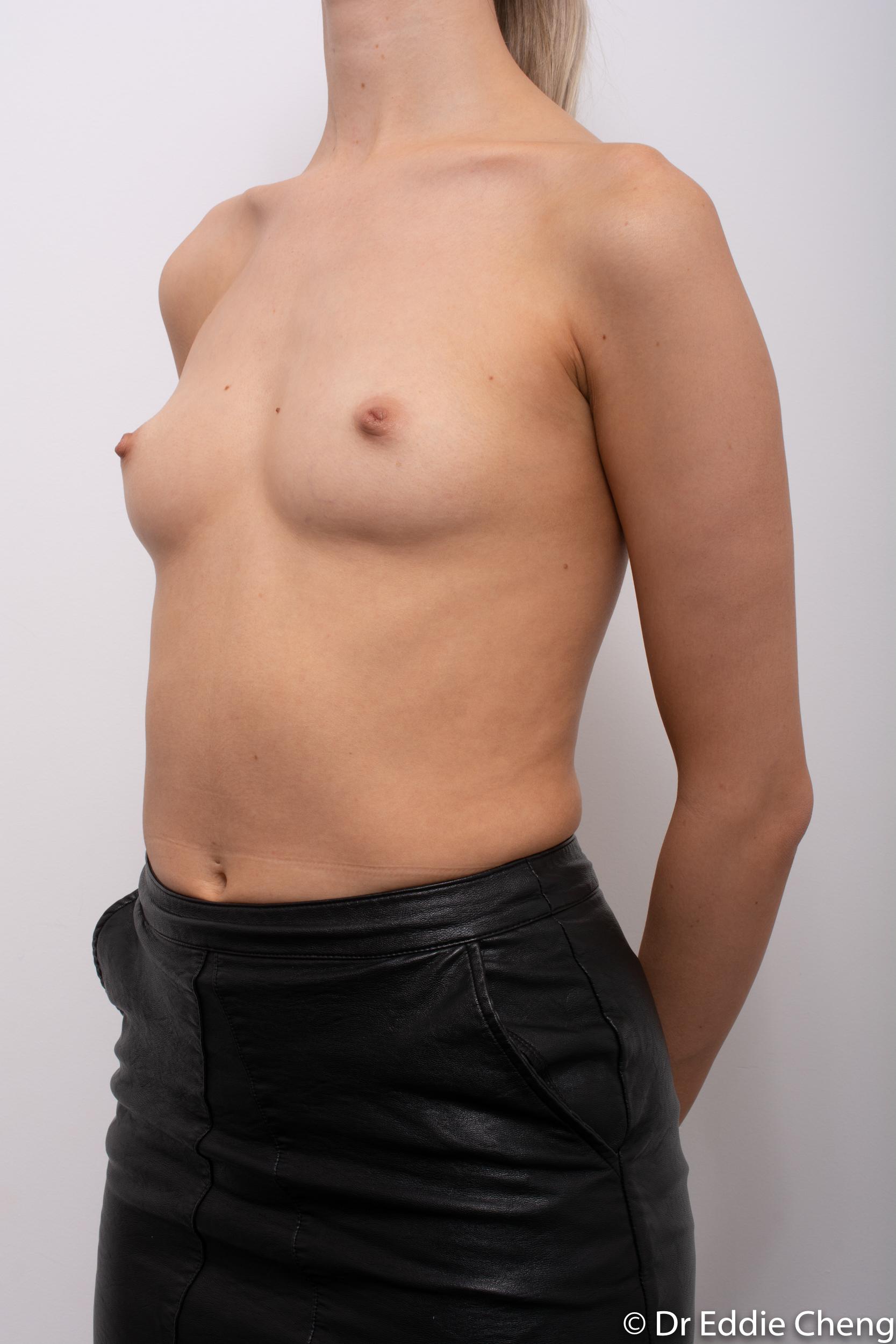 breast augmentation dr eddie cheng brisbane-4
