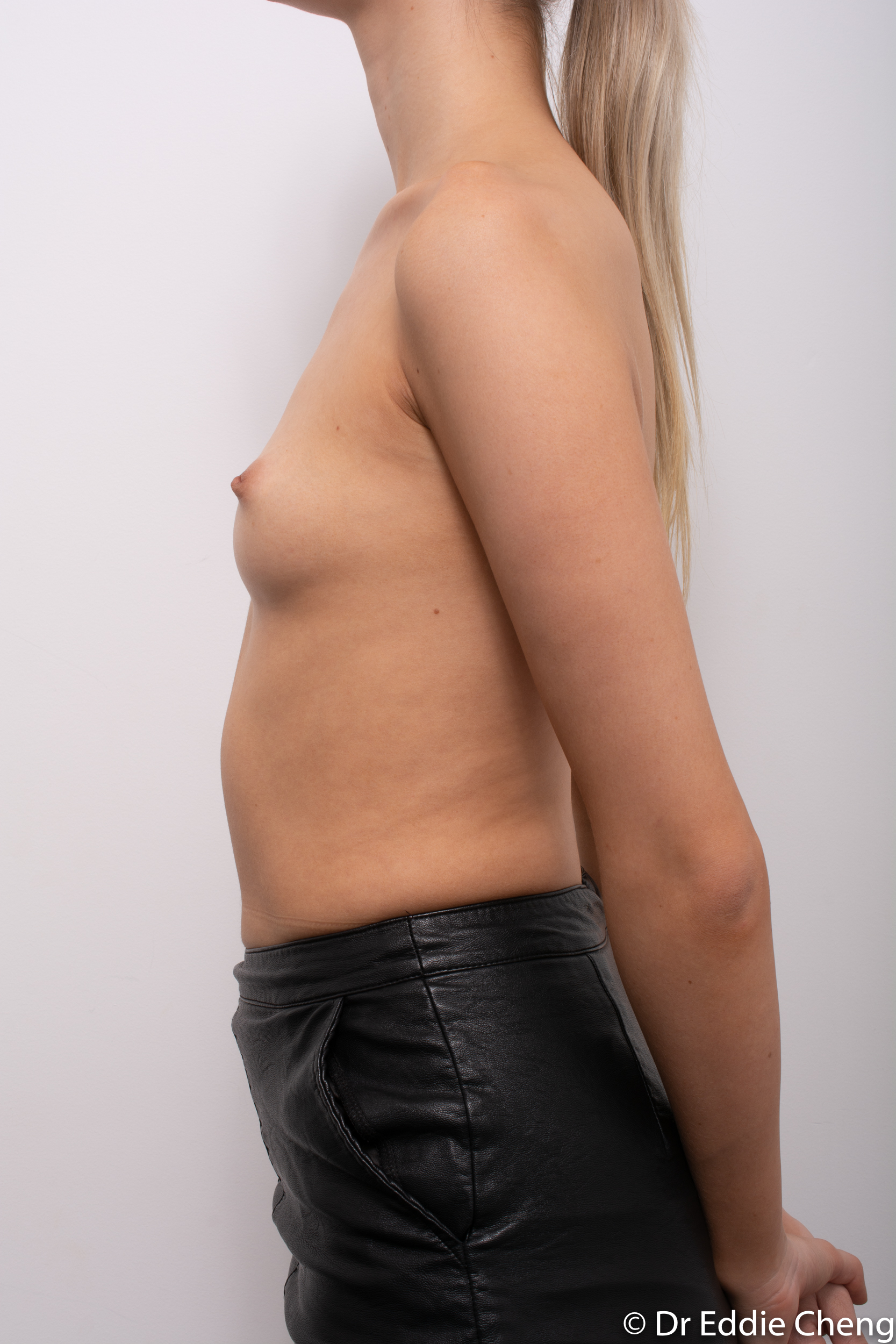 breast augmentation dr eddie cheng brisbane-5