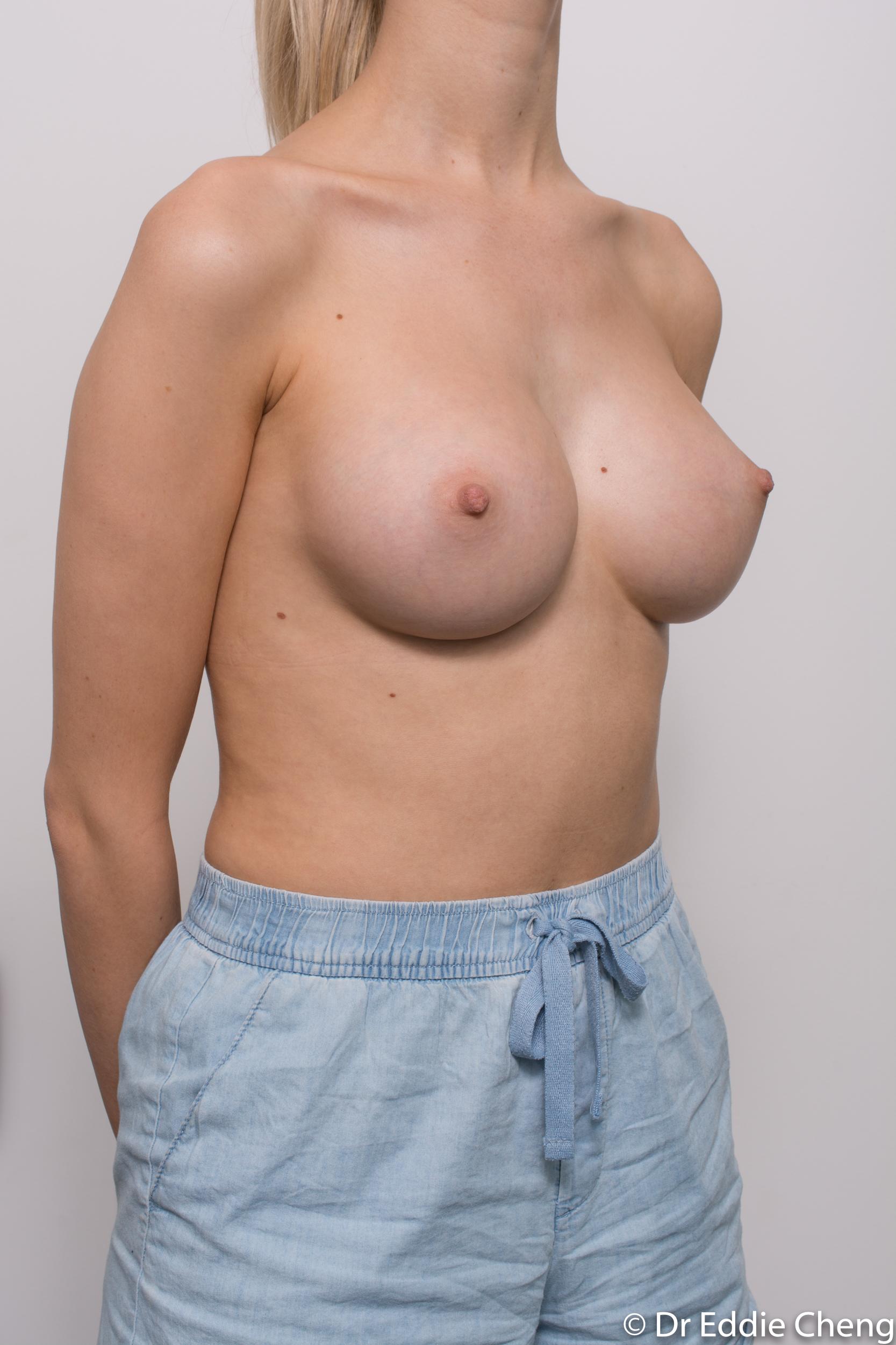 breast augmentation dr eddie cheng brisbane-7