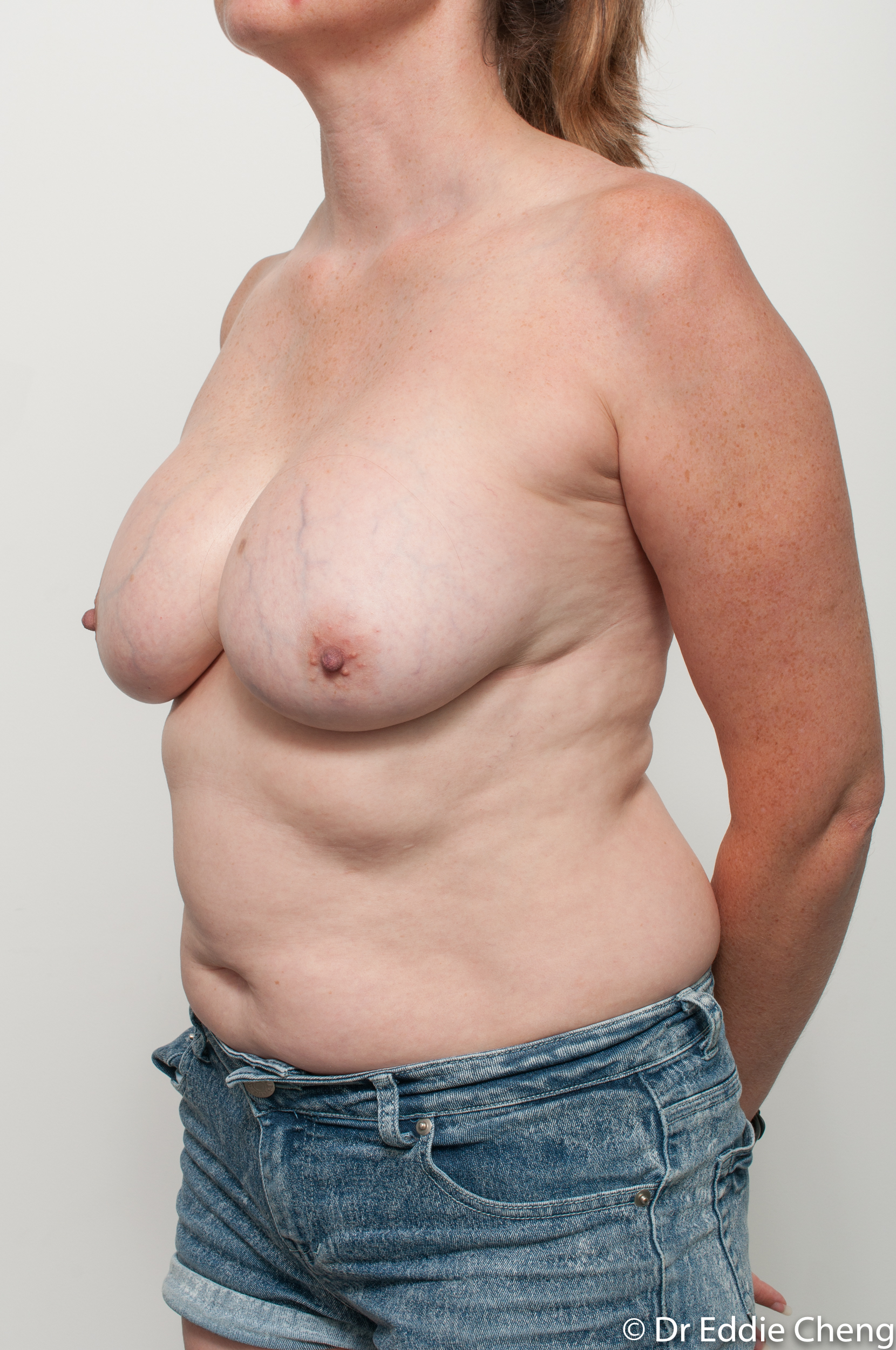 breast implant removal or explant and breast lift by dr eddie cheng brisbane-2