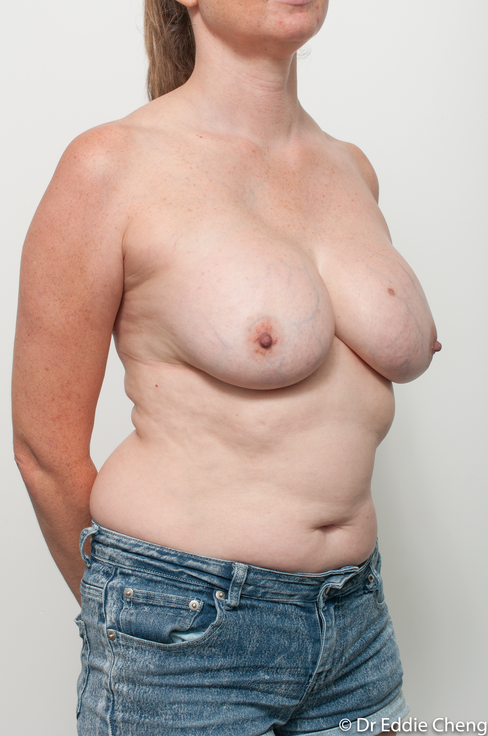 breast implant removal or explant and breast lift by dr eddie cheng brisbane-4