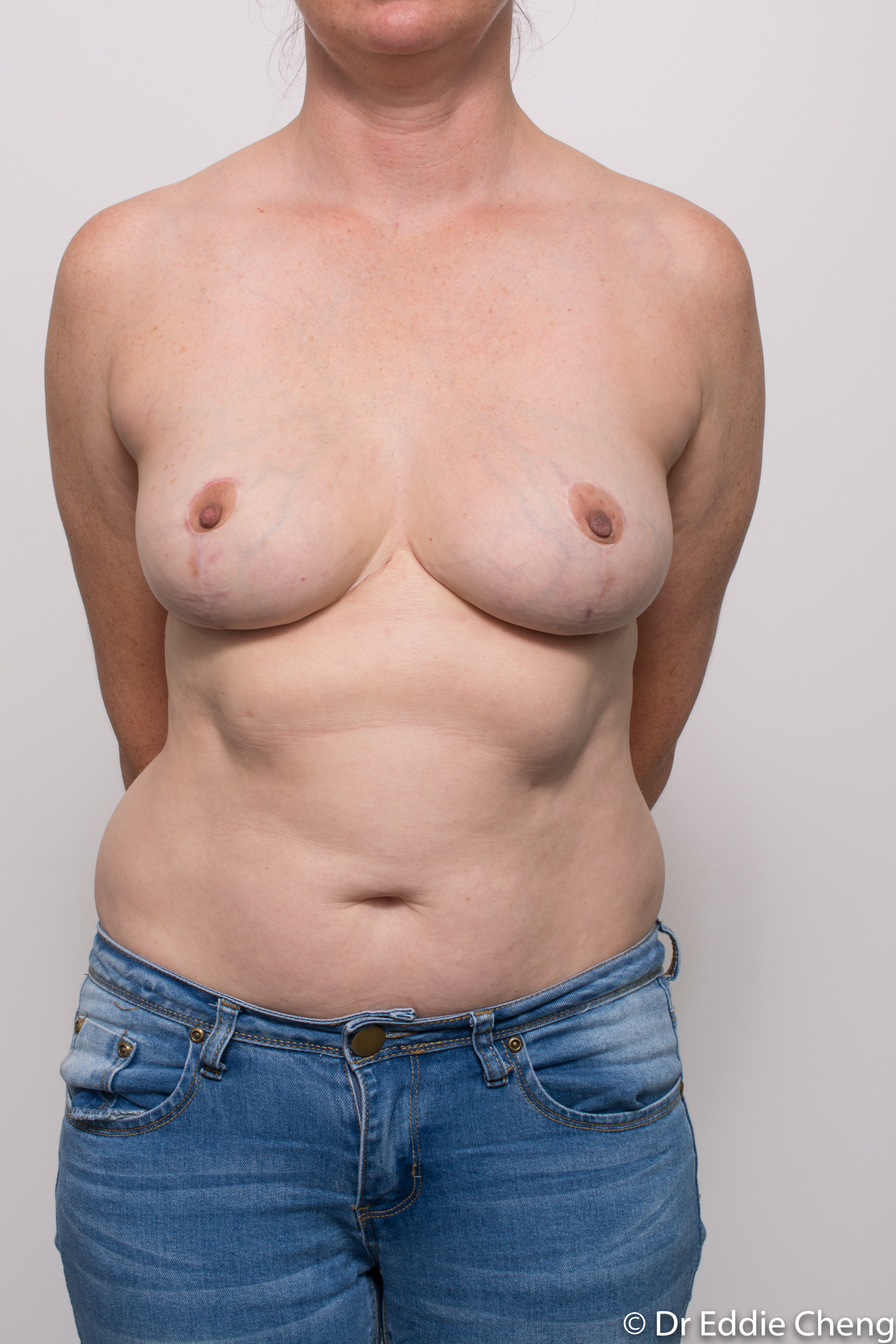 breast implant removal or explant and breast lift by dr eddie cheng brisbane-6