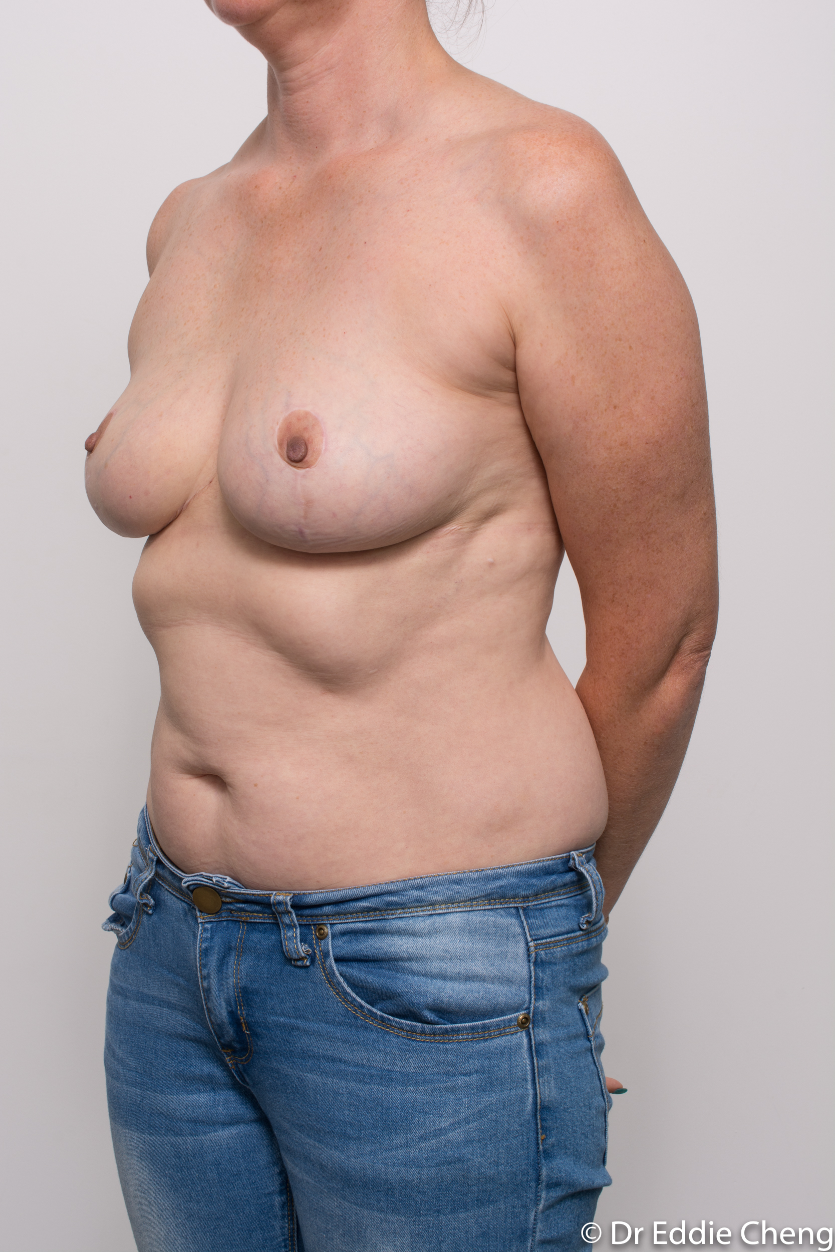 breast implant removal or explant and breast lift by dr eddie cheng brisbane-7