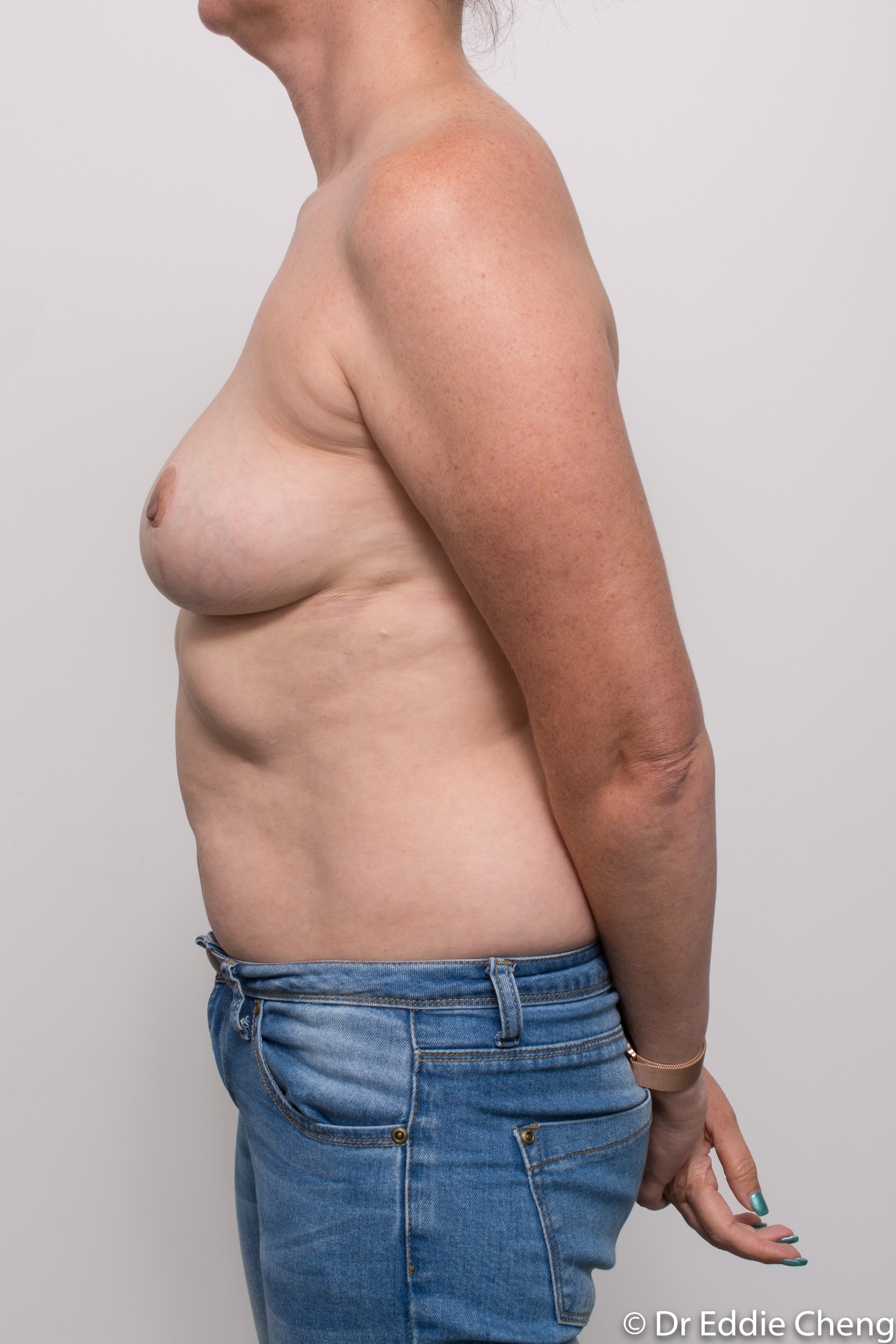 breast implant removal or explant and breast lift by dr eddie cheng brisbane-8