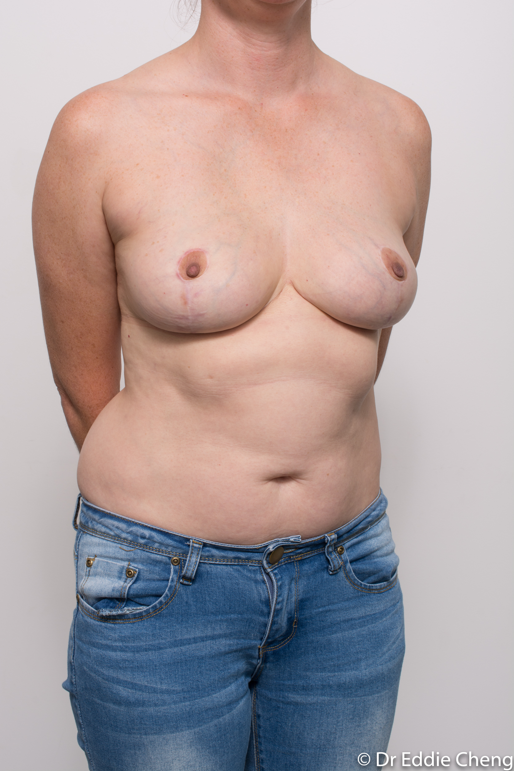 breast implant removal or explant and breast lift by dr eddie cheng brisbane-9
