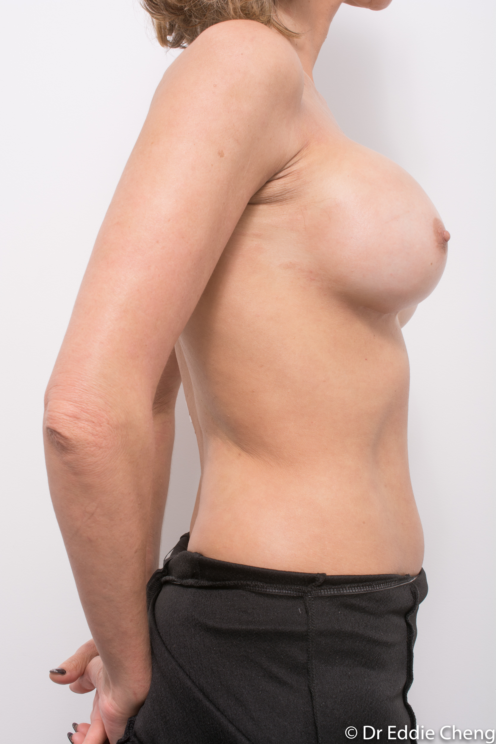 breast implant removal or explant by dr eddie cheng brisbane-1