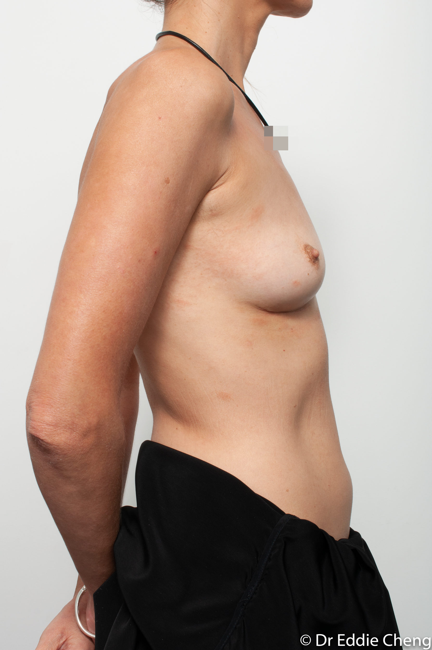 breast implant removal or explant by dr eddie cheng brisbane-10