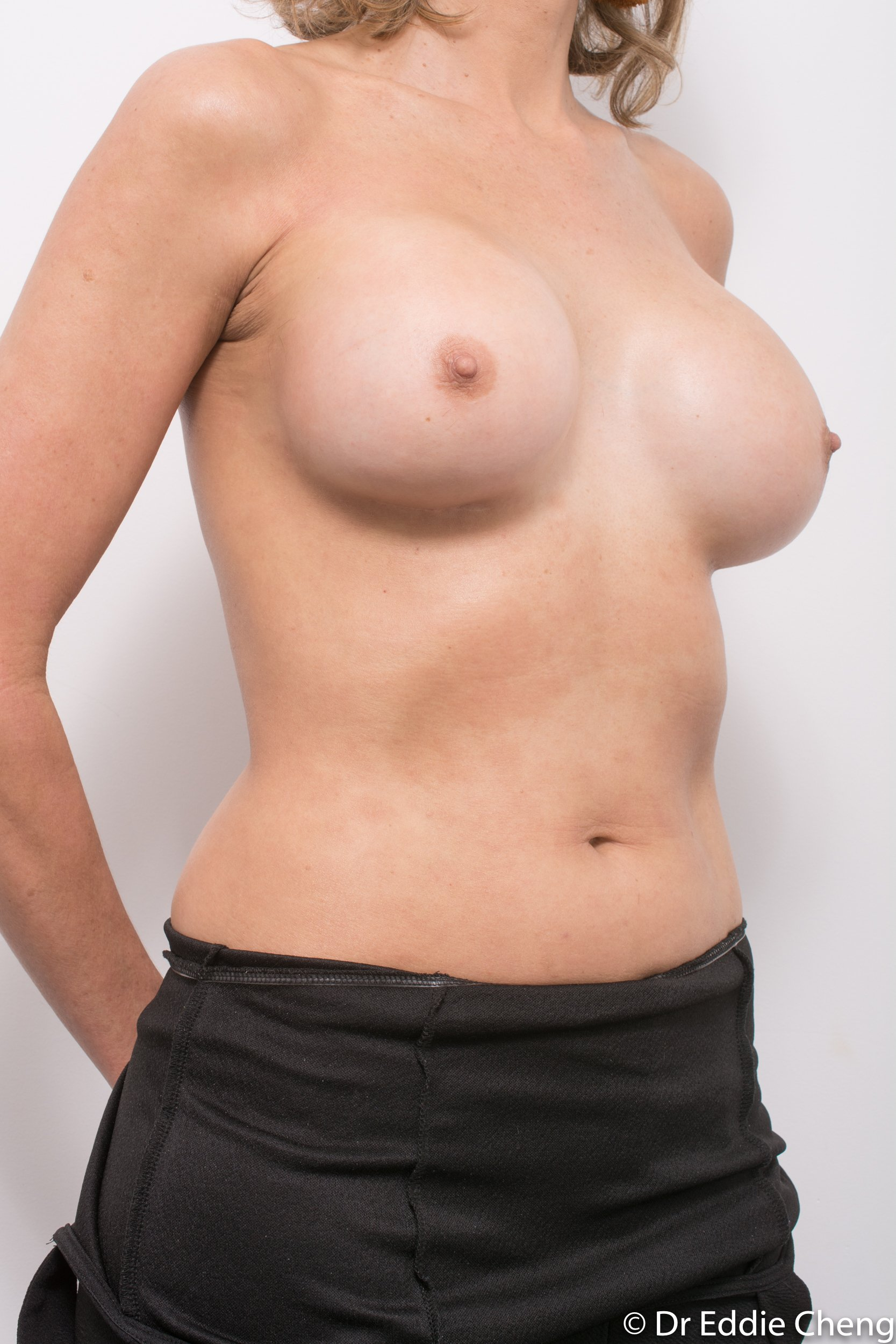 breast implant removal or explant by dr eddie cheng brisbane-2