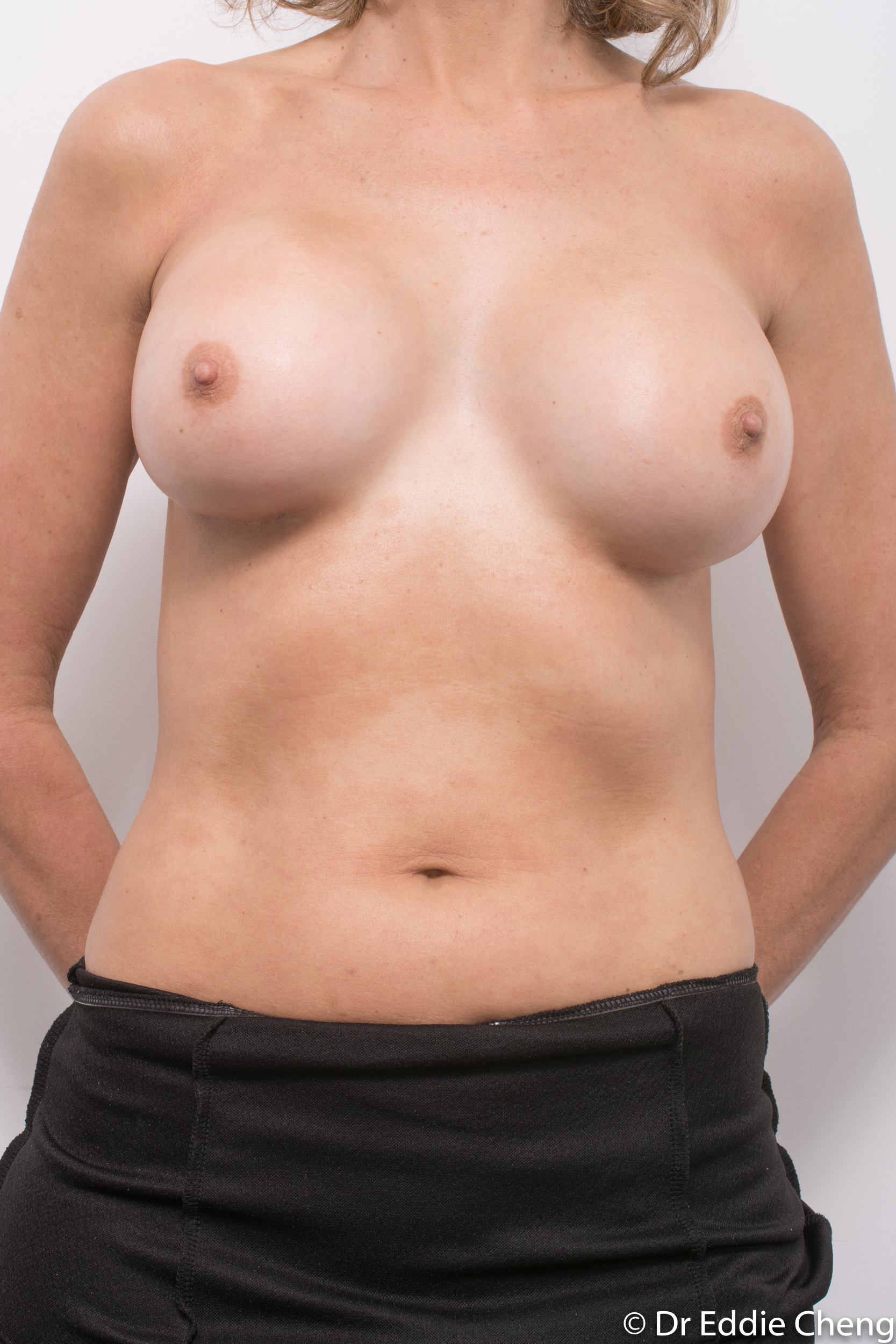 breast implant removal or explant by dr eddie cheng brisbane-3