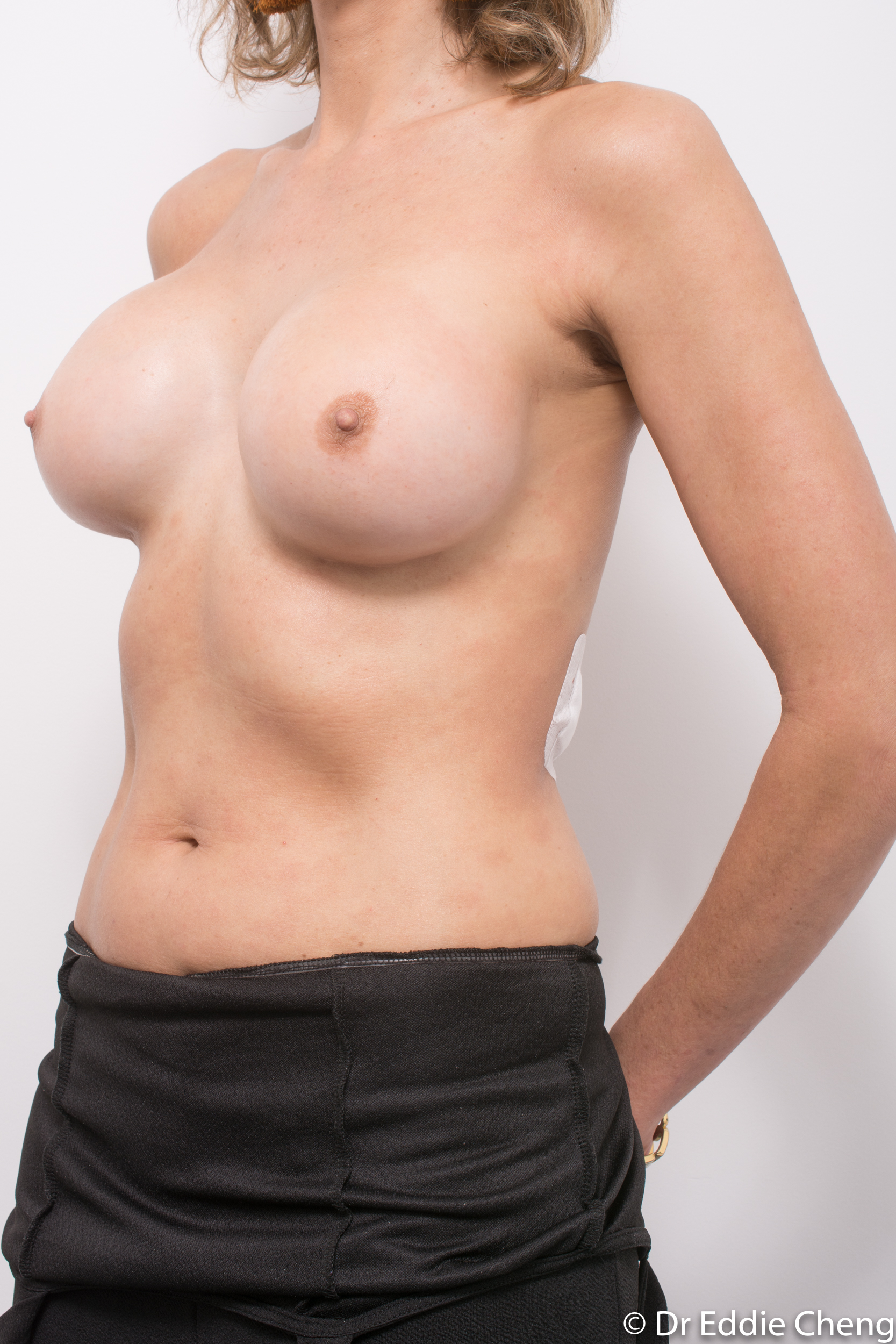 breast implant removal or explant by dr eddie cheng brisbane-4