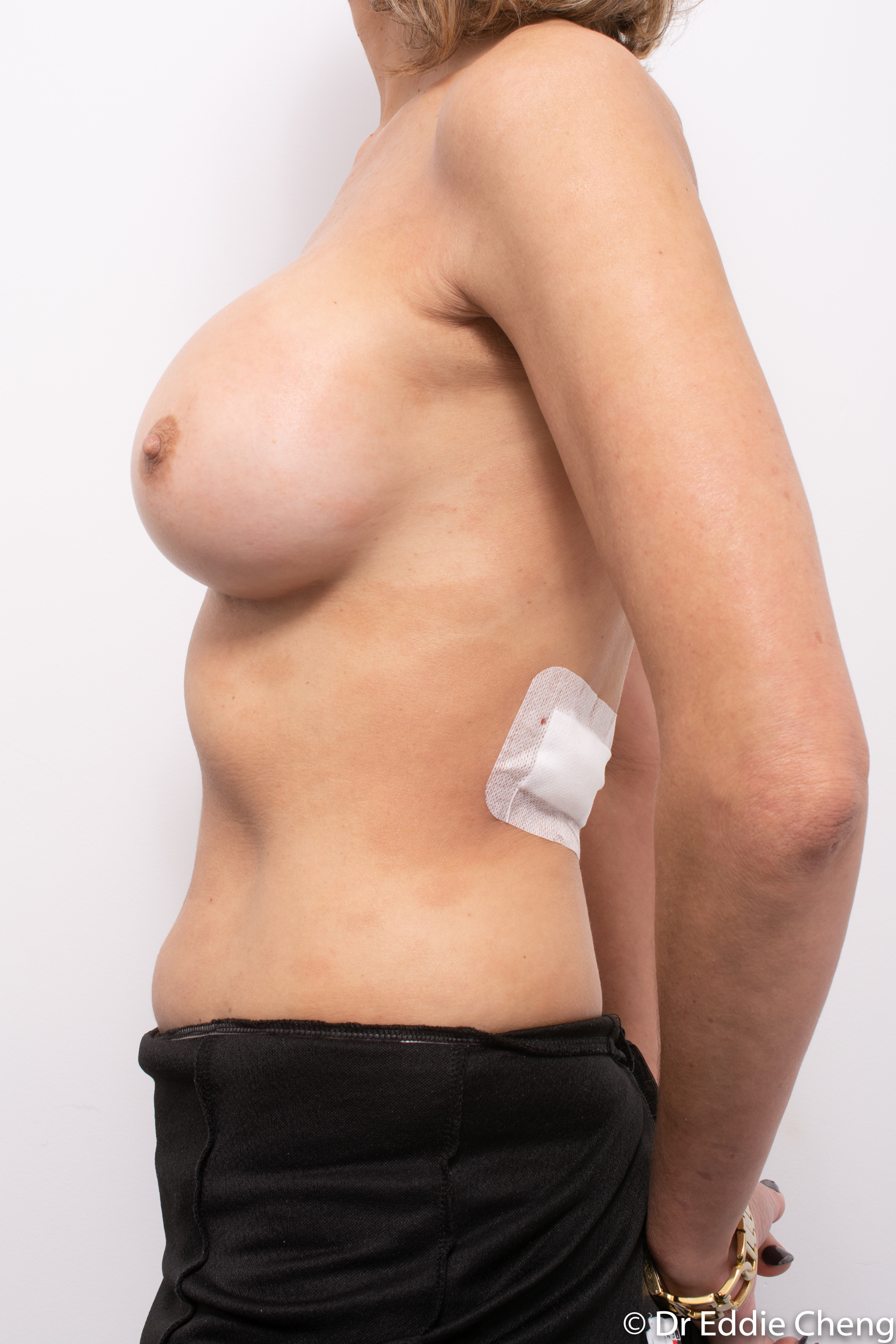 breast implant removal or explant by dr eddie cheng brisbane-5