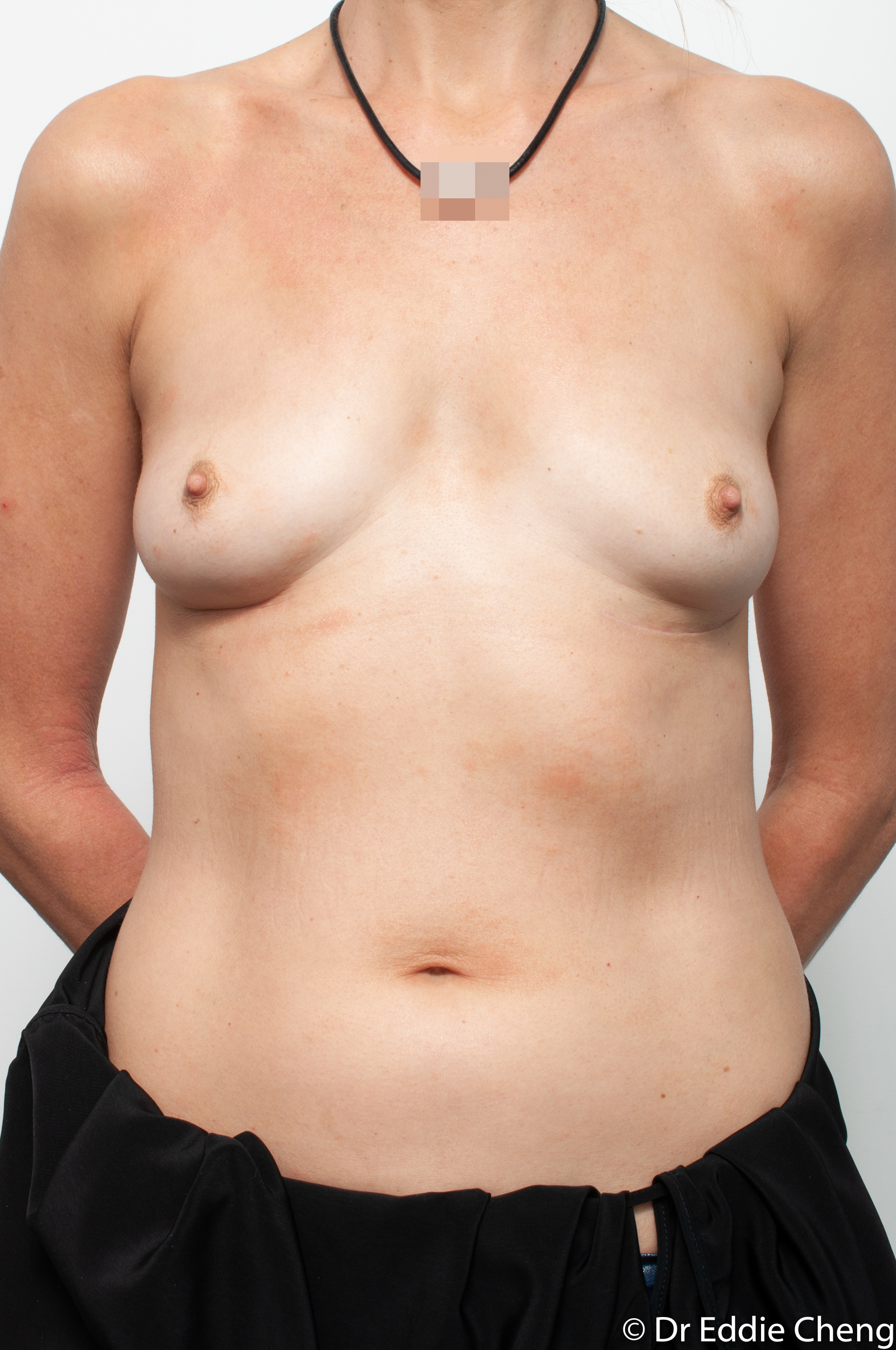 breast implant removal or explant by dr eddie cheng brisbane-6