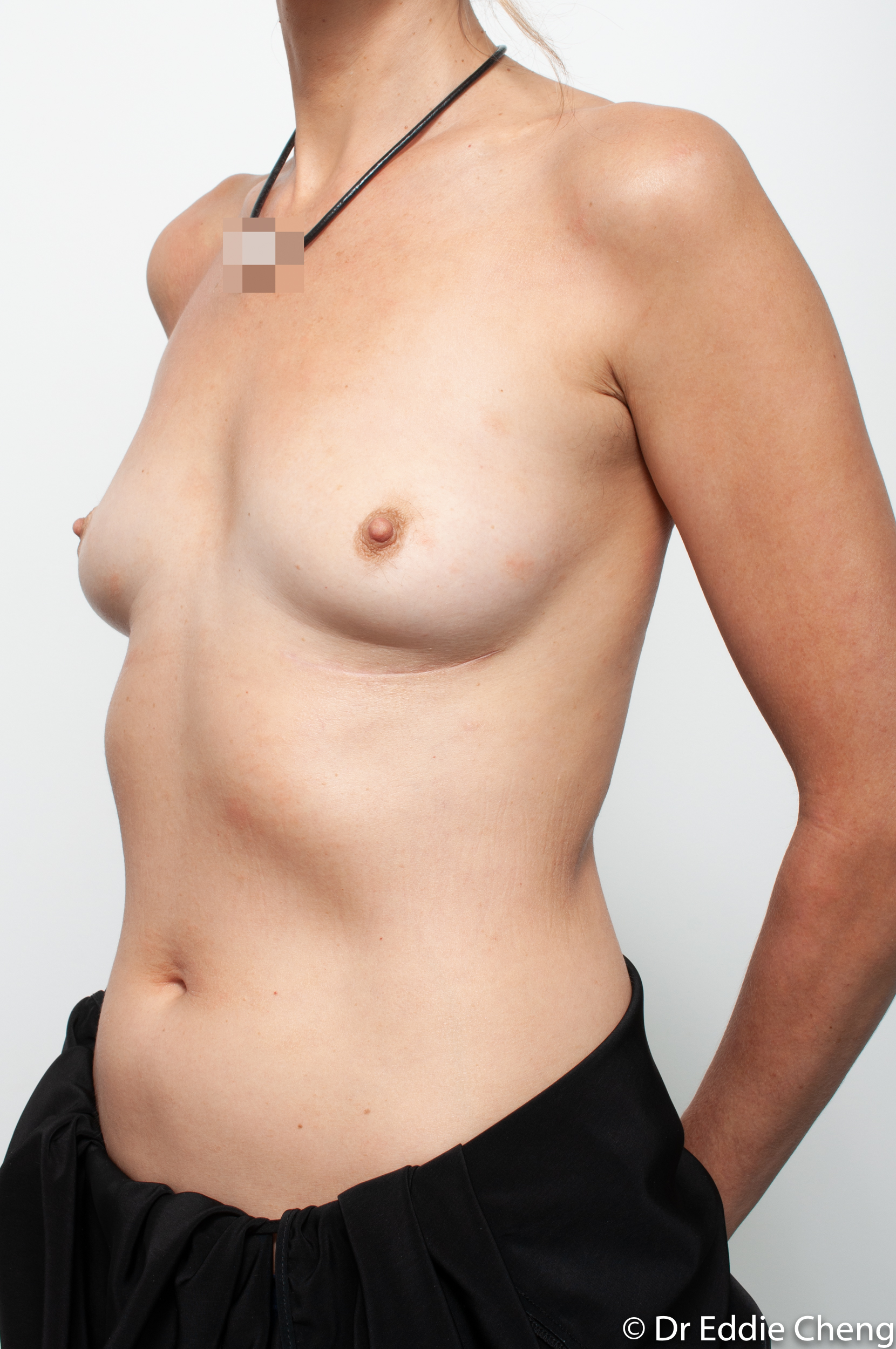 breast implant removal or explant by dr eddie cheng brisbane-7