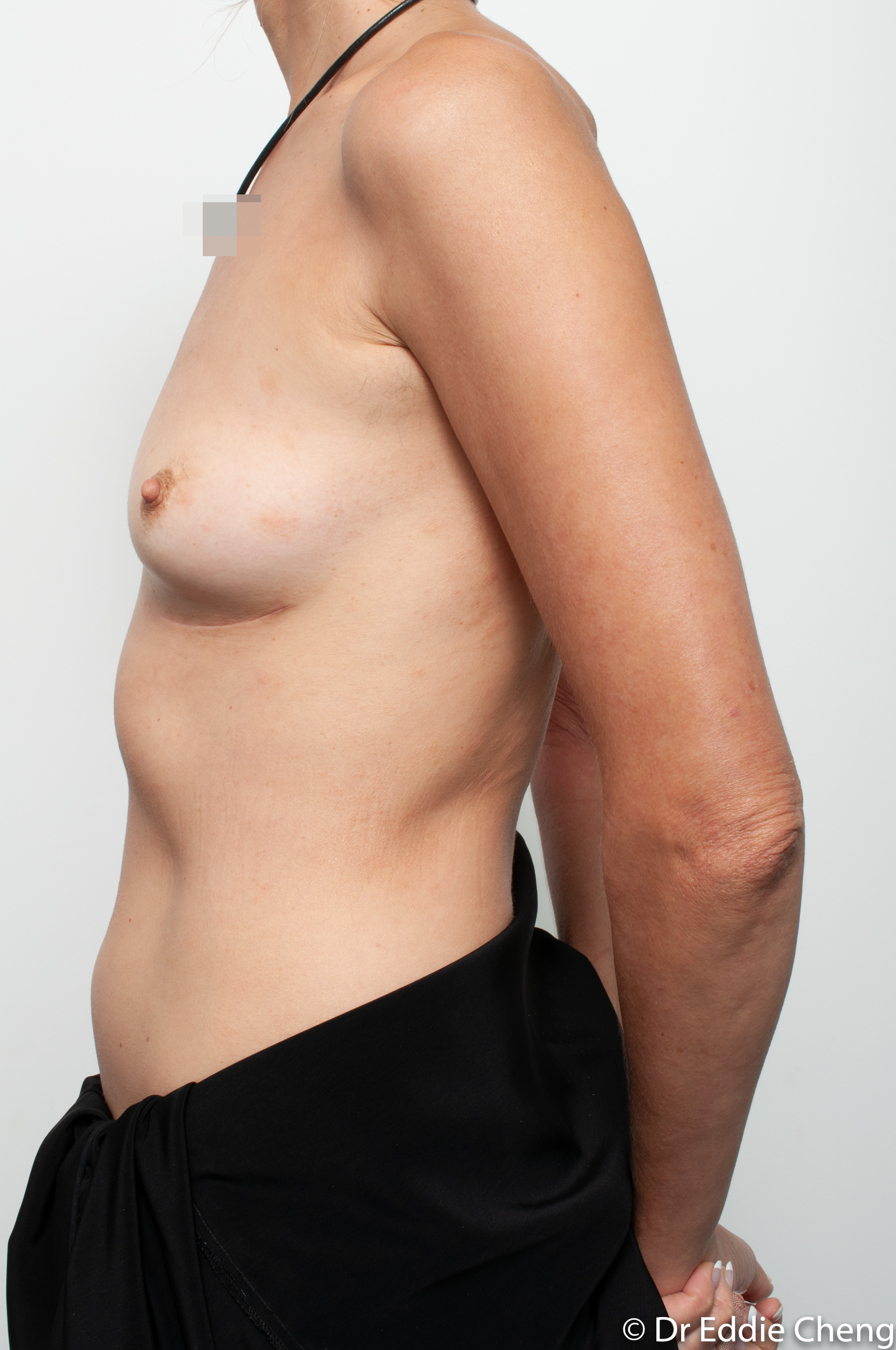 breast implant removal or explant by dr eddie cheng brisbane-8
