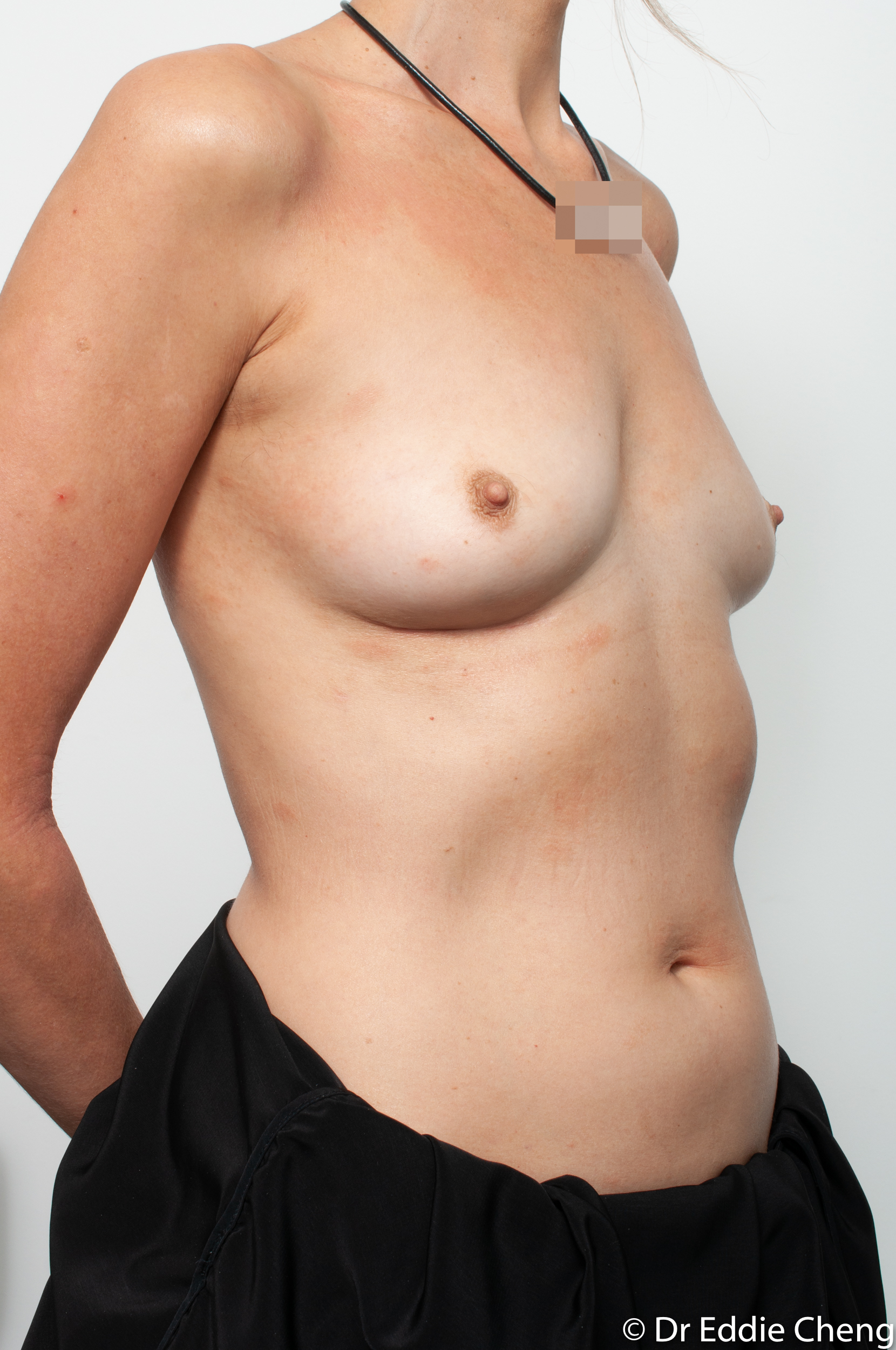 breast implant removal or explant by dr eddie cheng brisbane-9