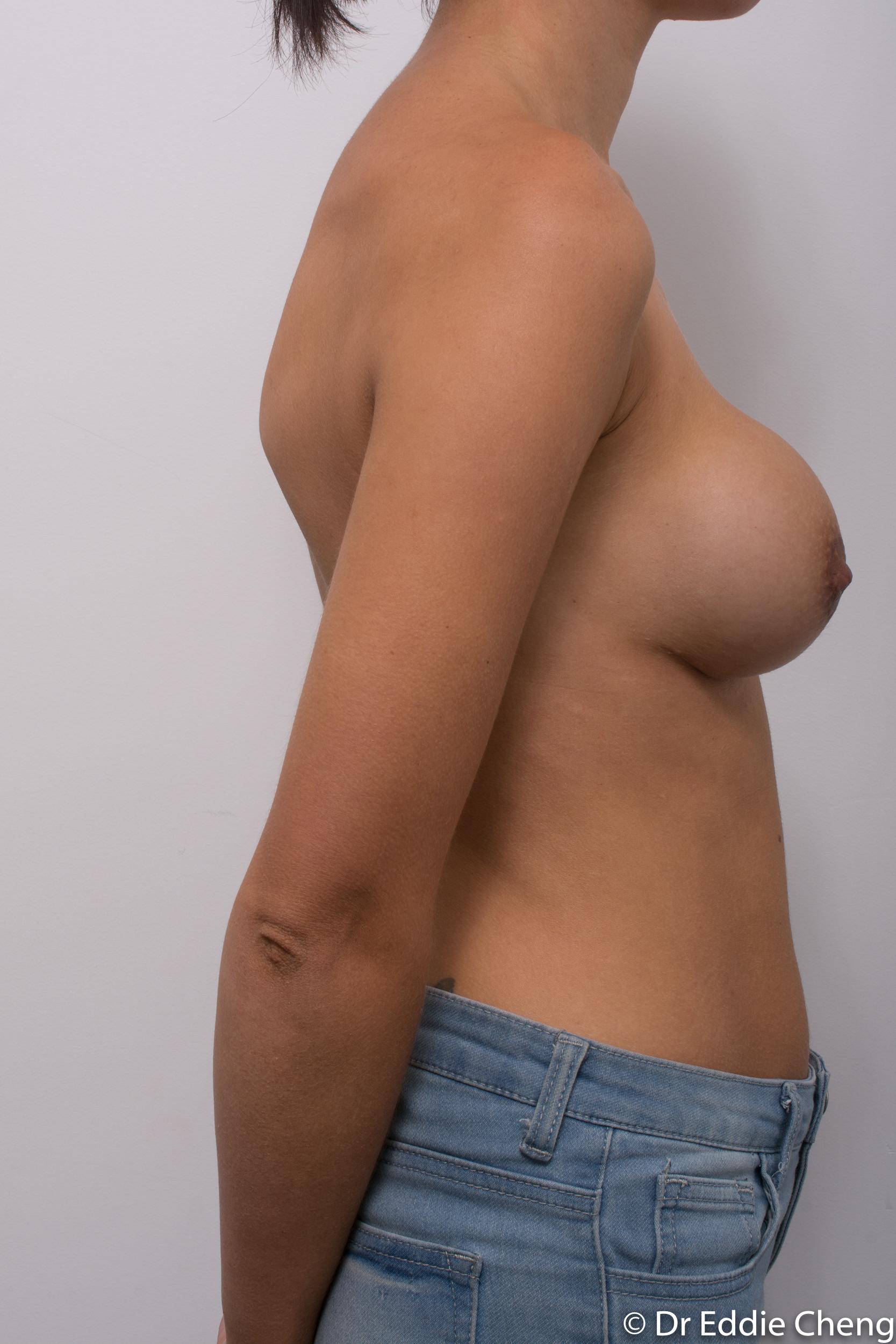 breast implant revision dr eddie cheng brisbane-1