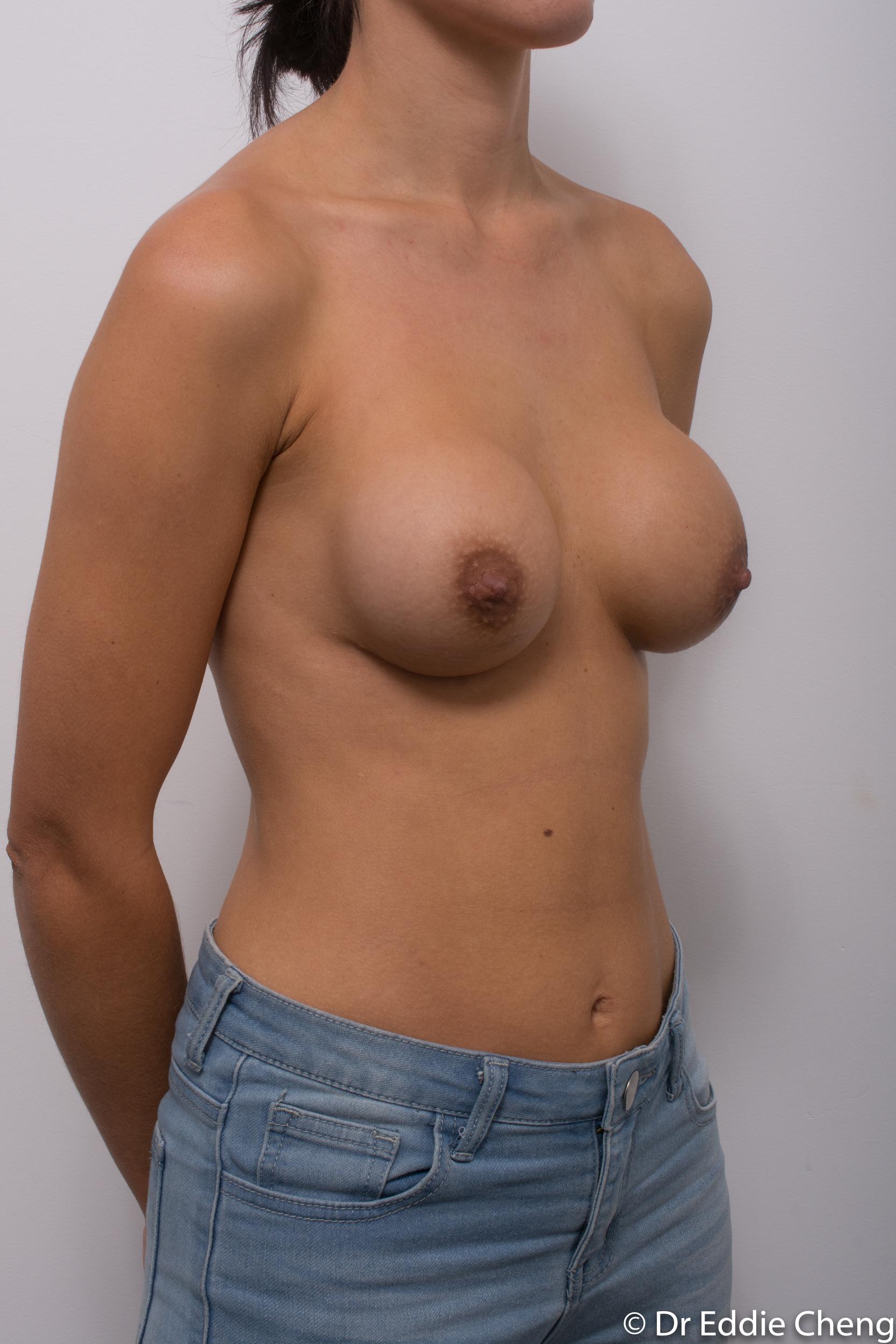 breast implant revision dr eddie cheng brisbane-2