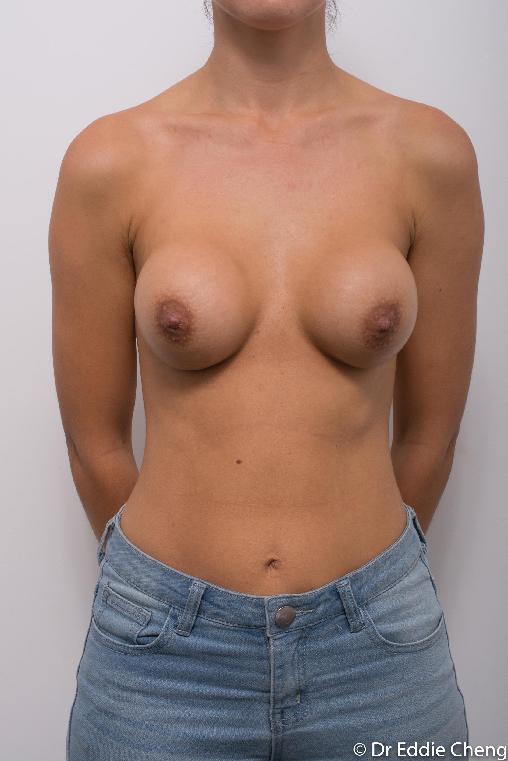breast implant revision dr eddie cheng brisbane-3