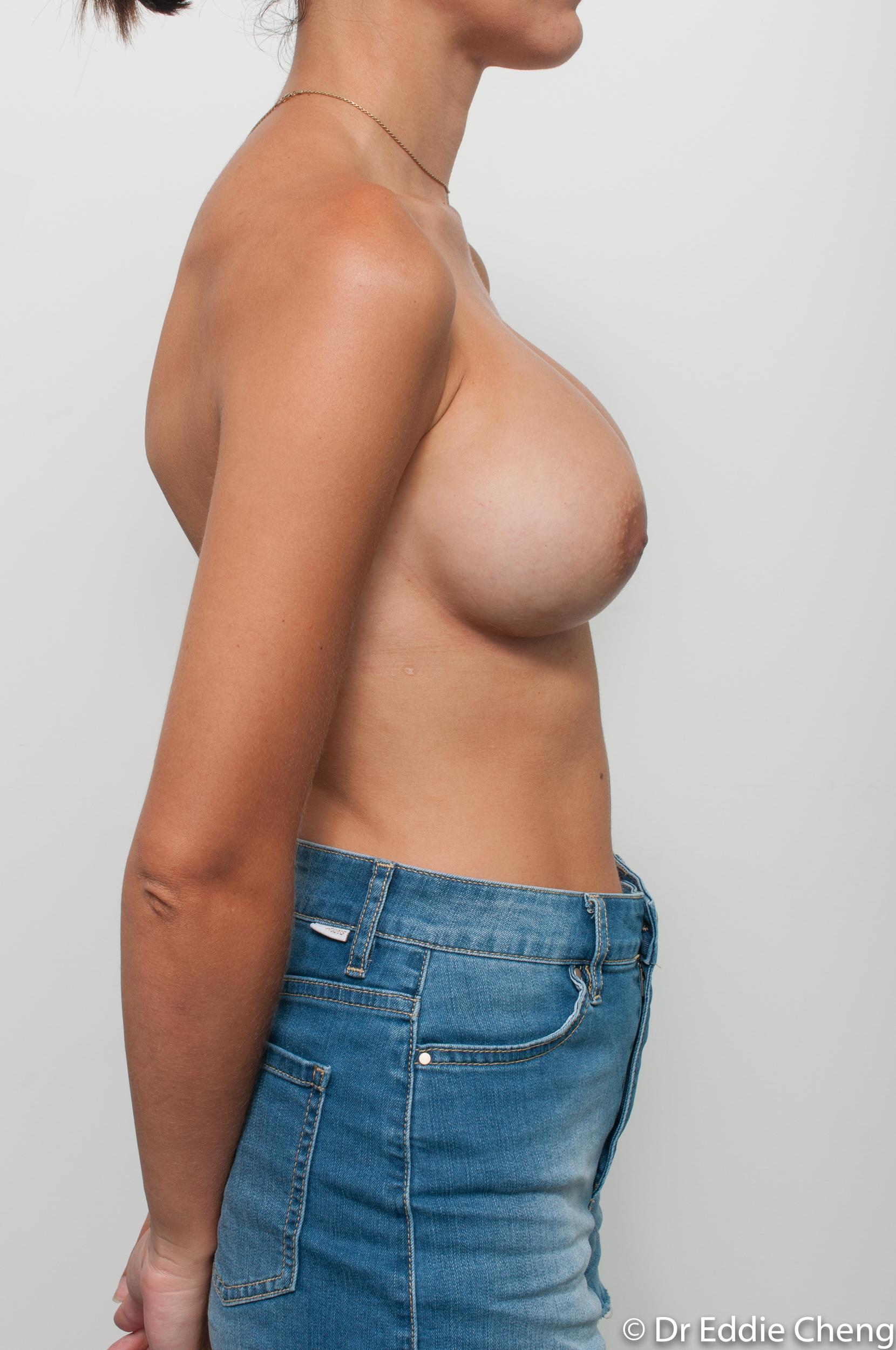 breast implant revision dr eddie cheng brisbane-6
