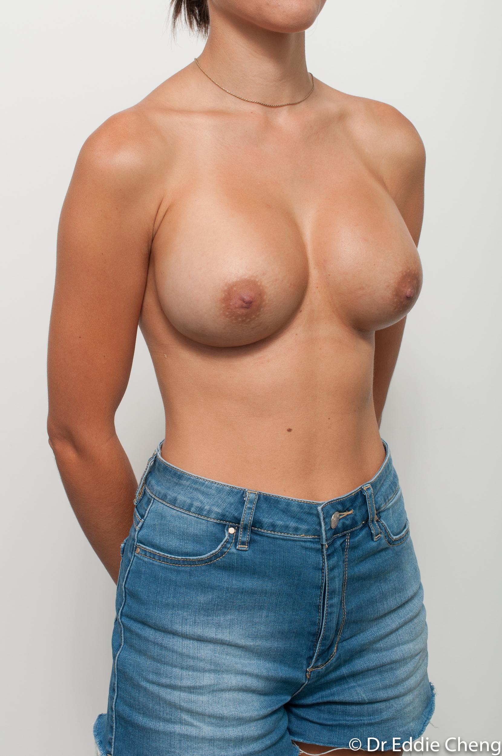 breast implant revision dr eddie cheng brisbane-7